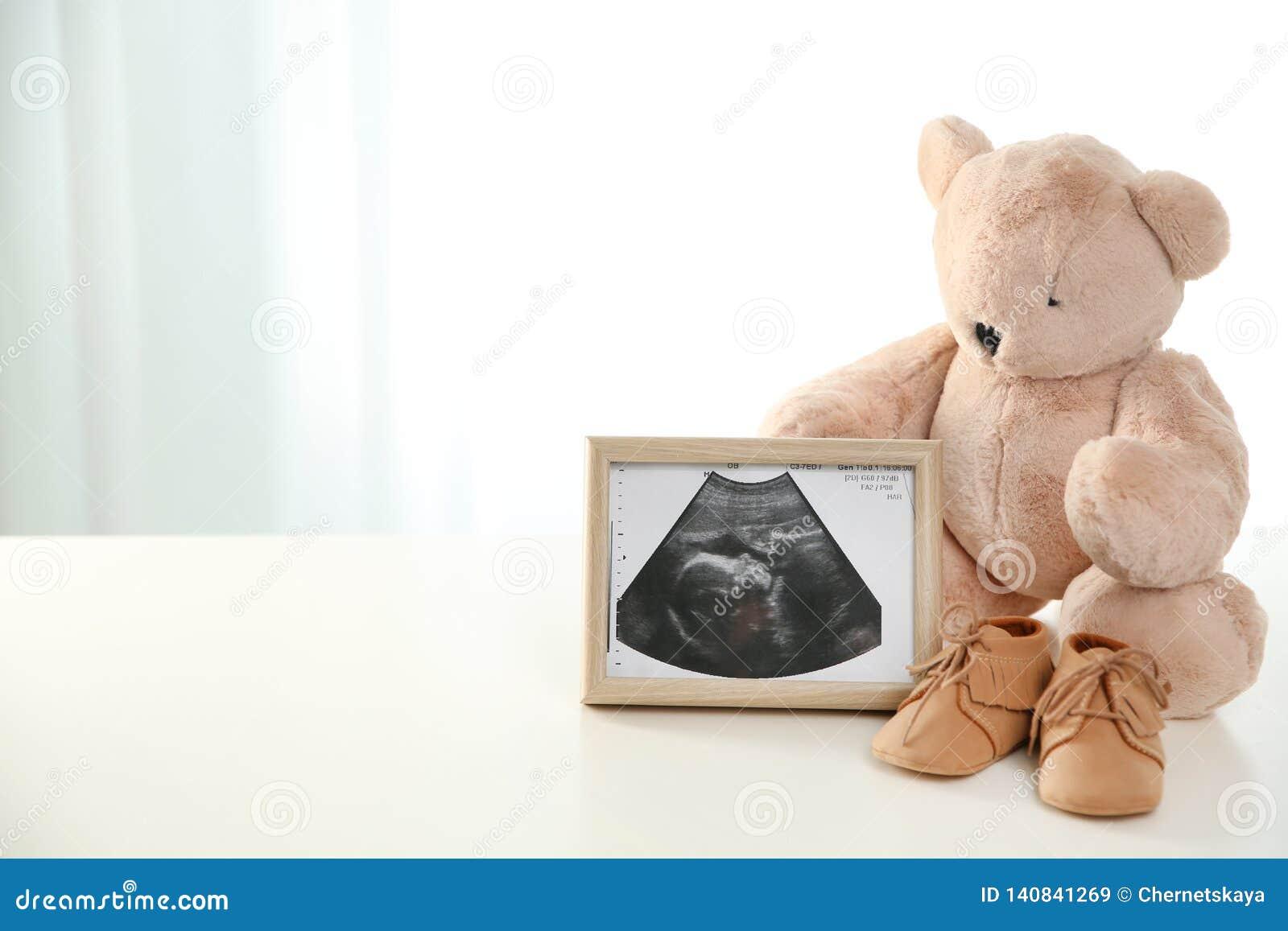 Imagen del ultrasonido, oso de peluche y zapatos de bebé en la tabla contra fondo ligero