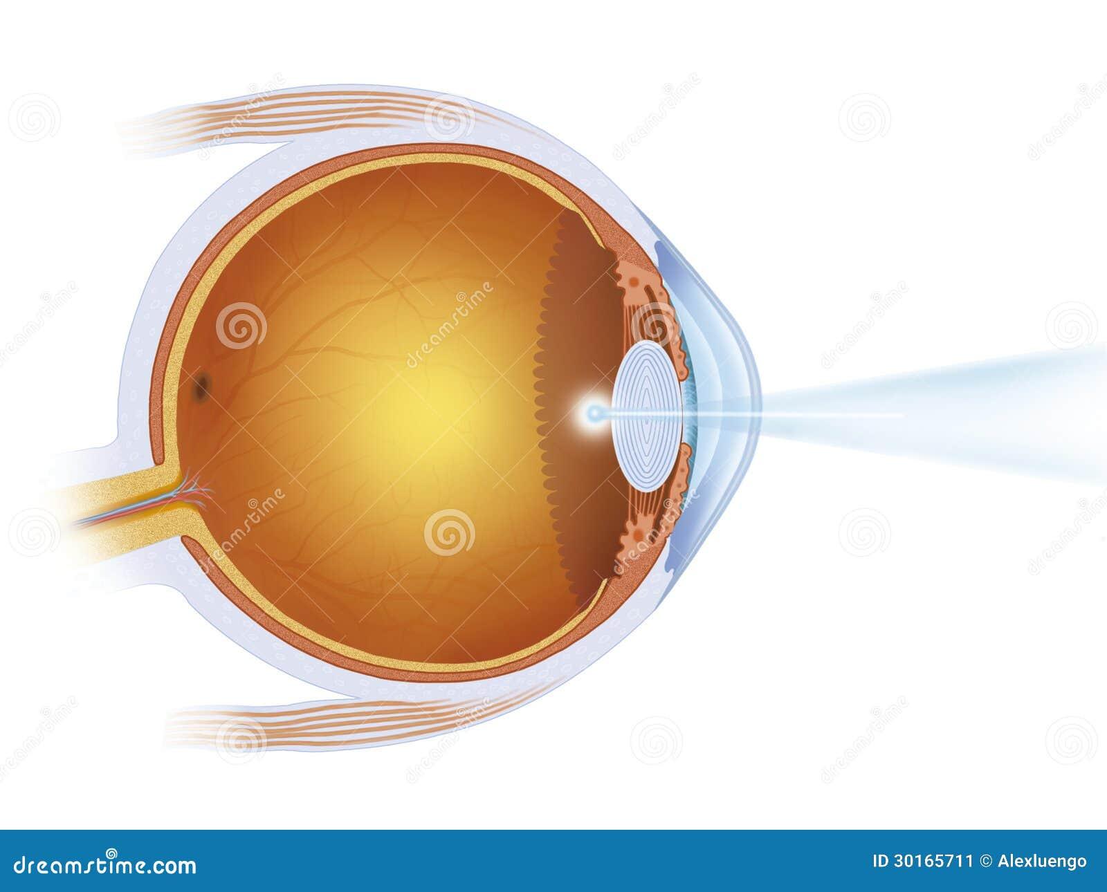 Supracor eye surgery