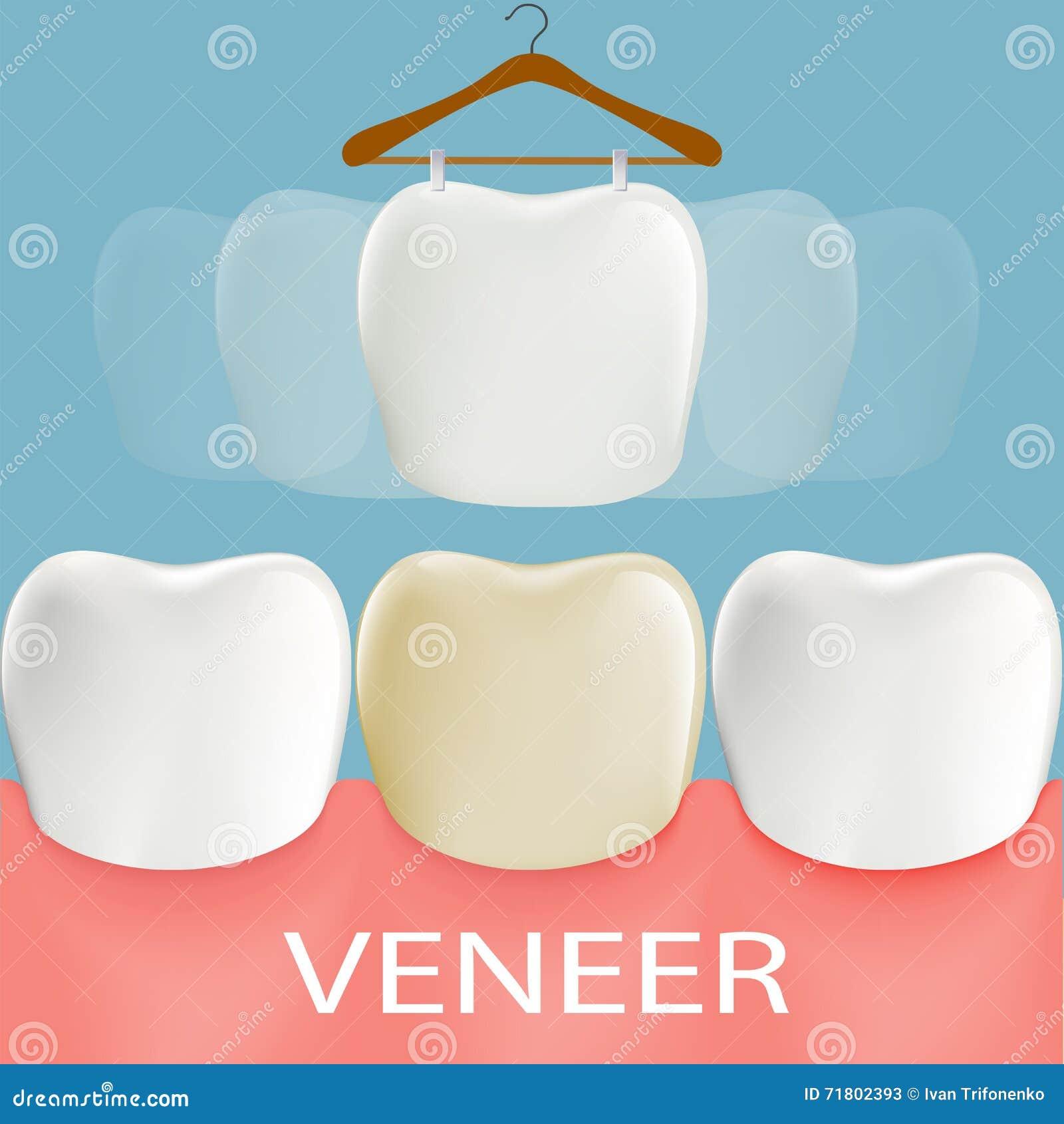 Impiallacciature dentarie Anatomia del dente