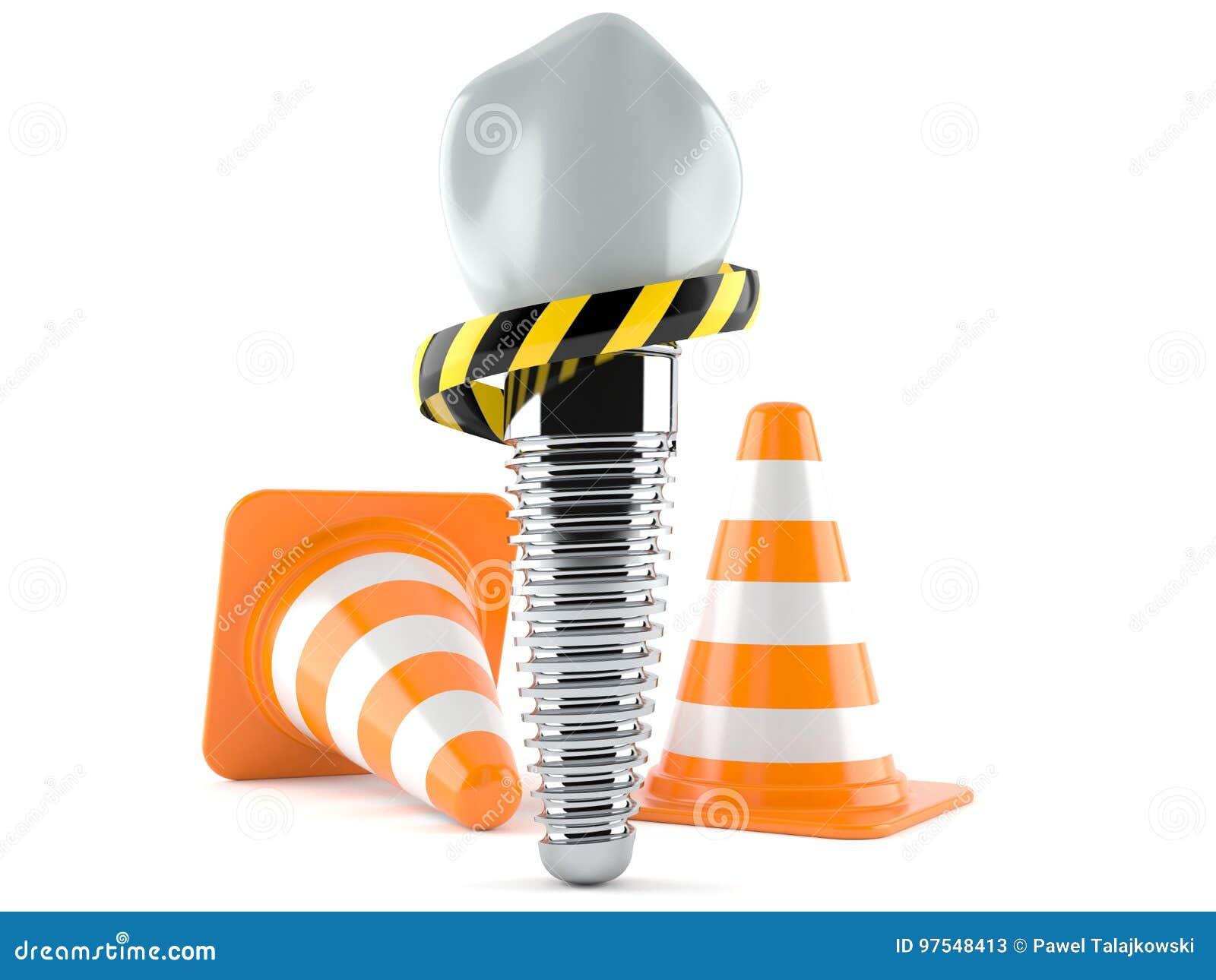Implant dentaire avec des cônes du trafic