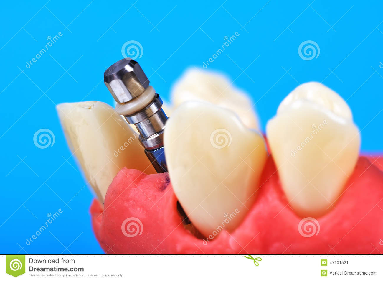 Implant dentaire de dent