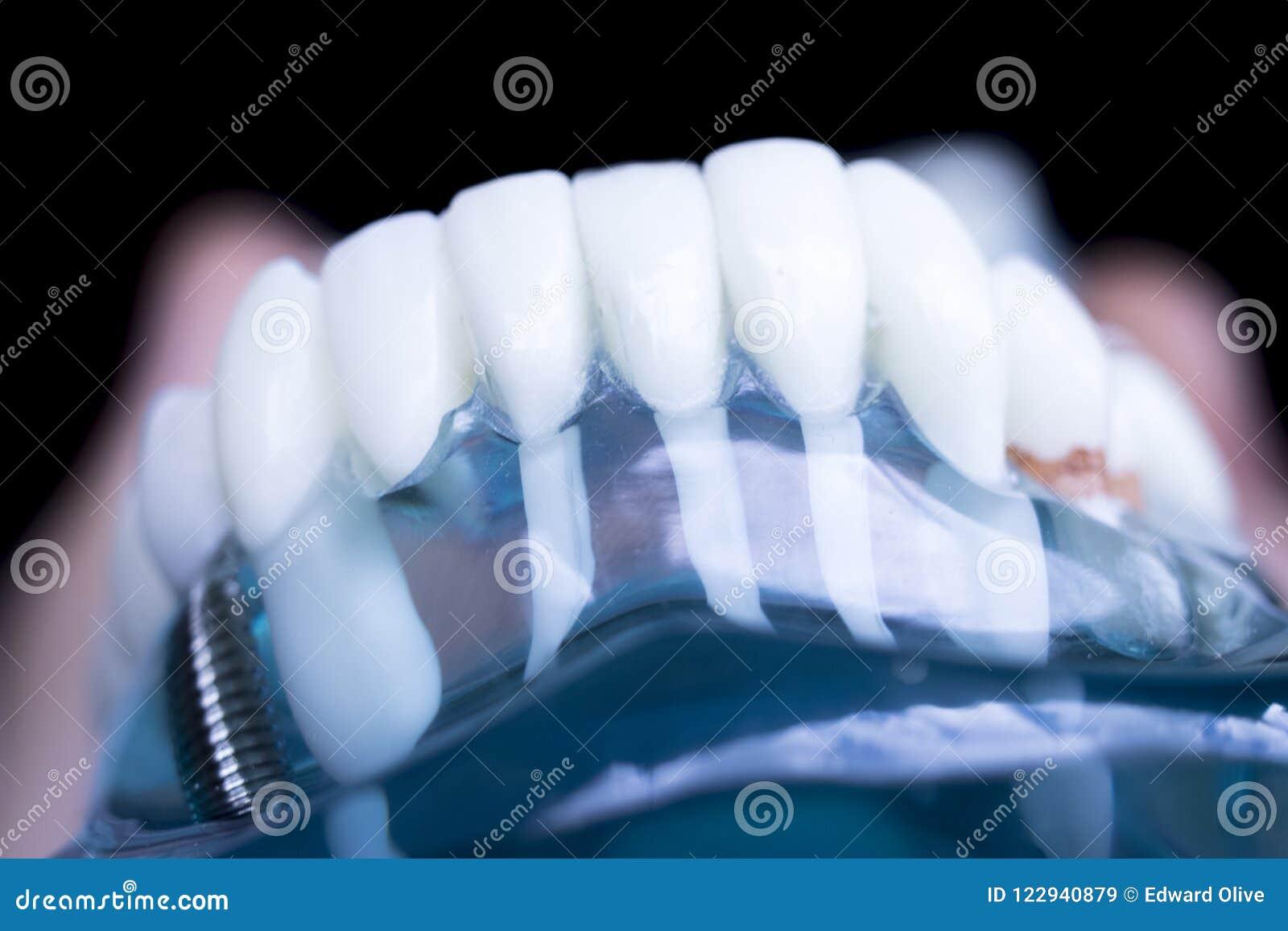 Implant dentaire de dents de dentiste