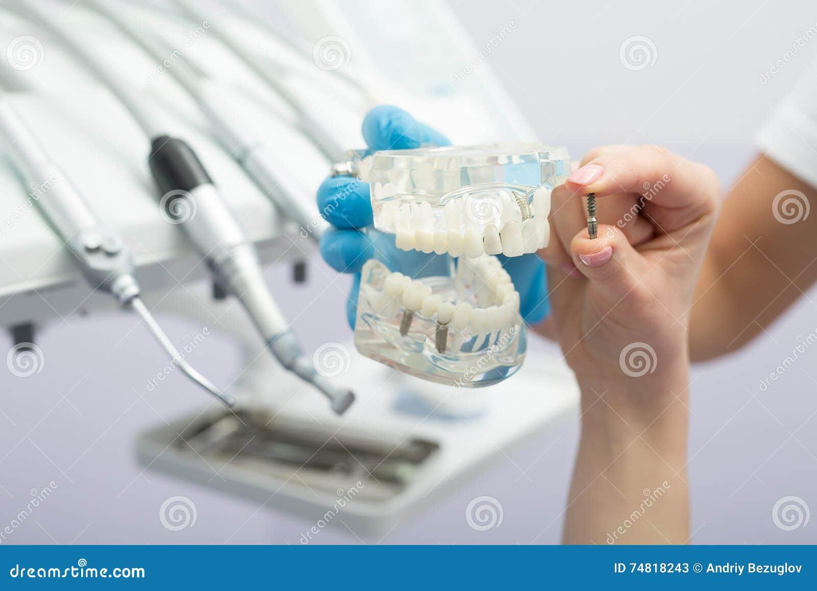 Implant teeth model