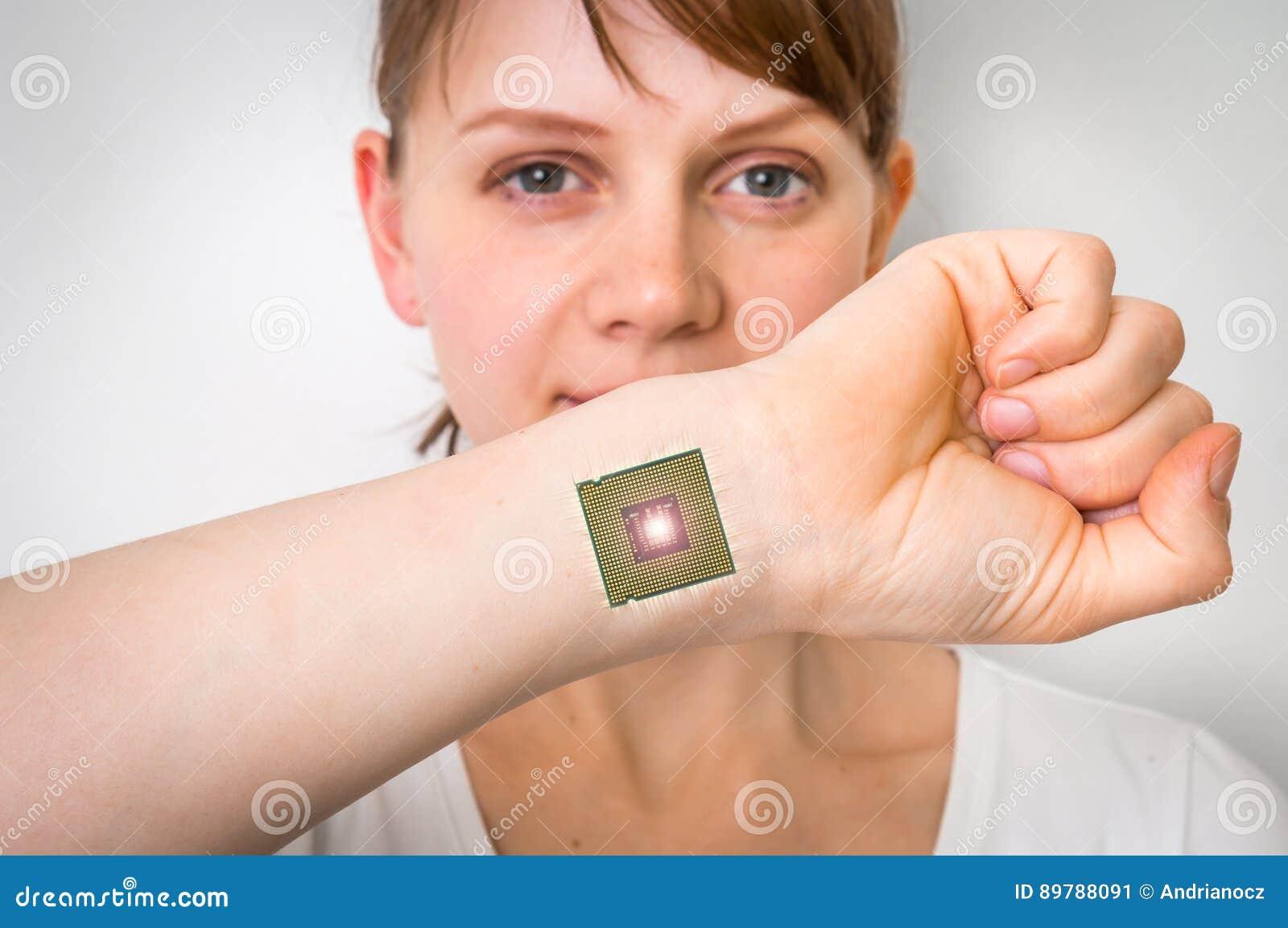 Implante biônico do processador da microplaqueta no corpo humano fêmea
