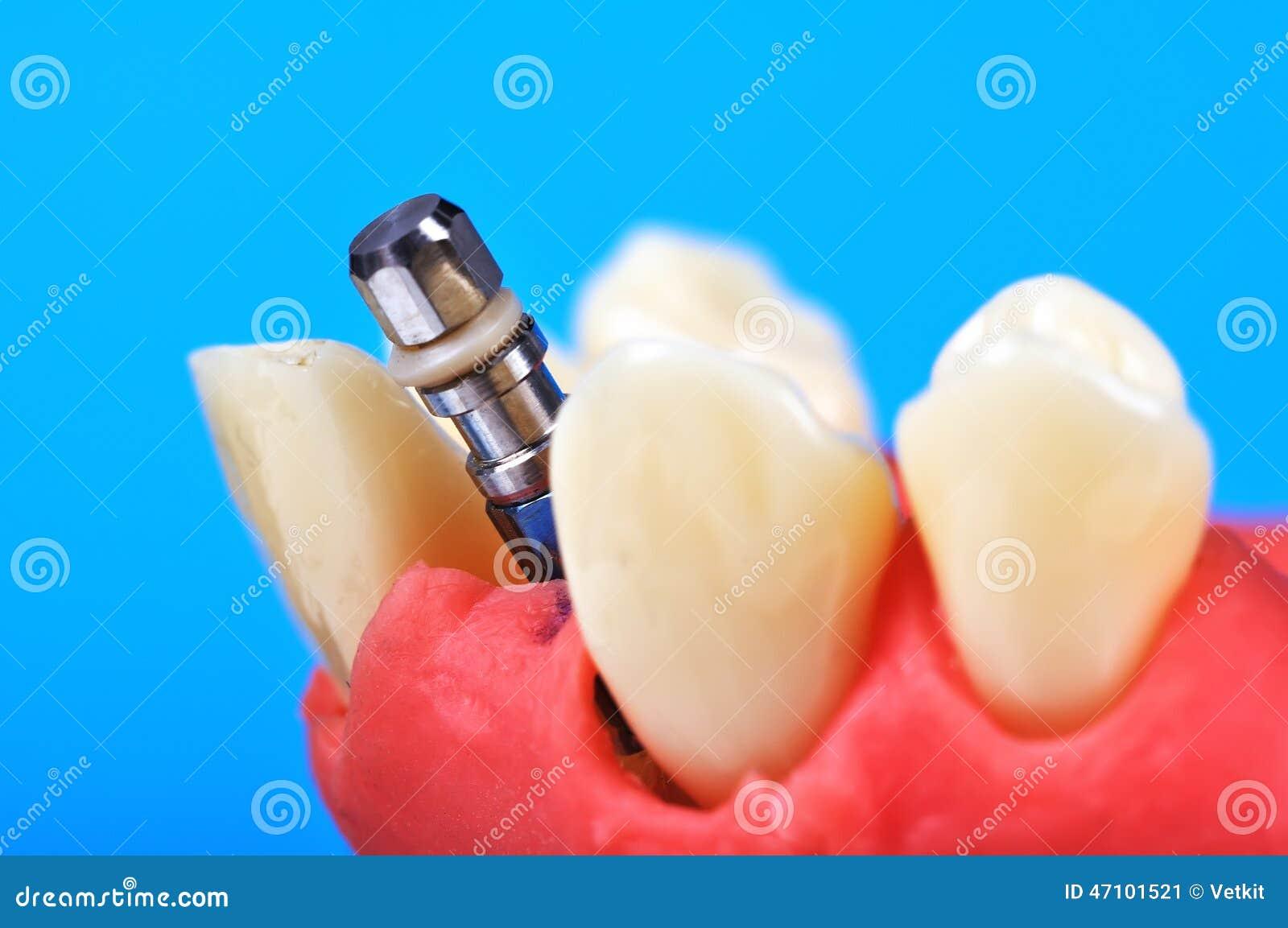 Implante dental del diente