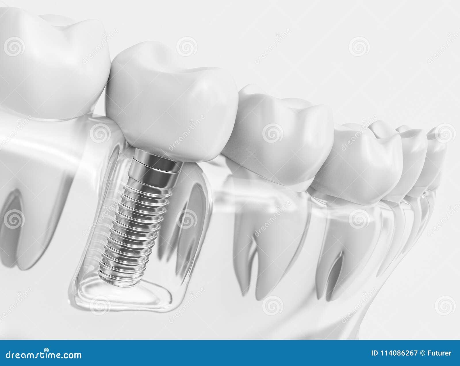 Implante humano del diente - representación 3d