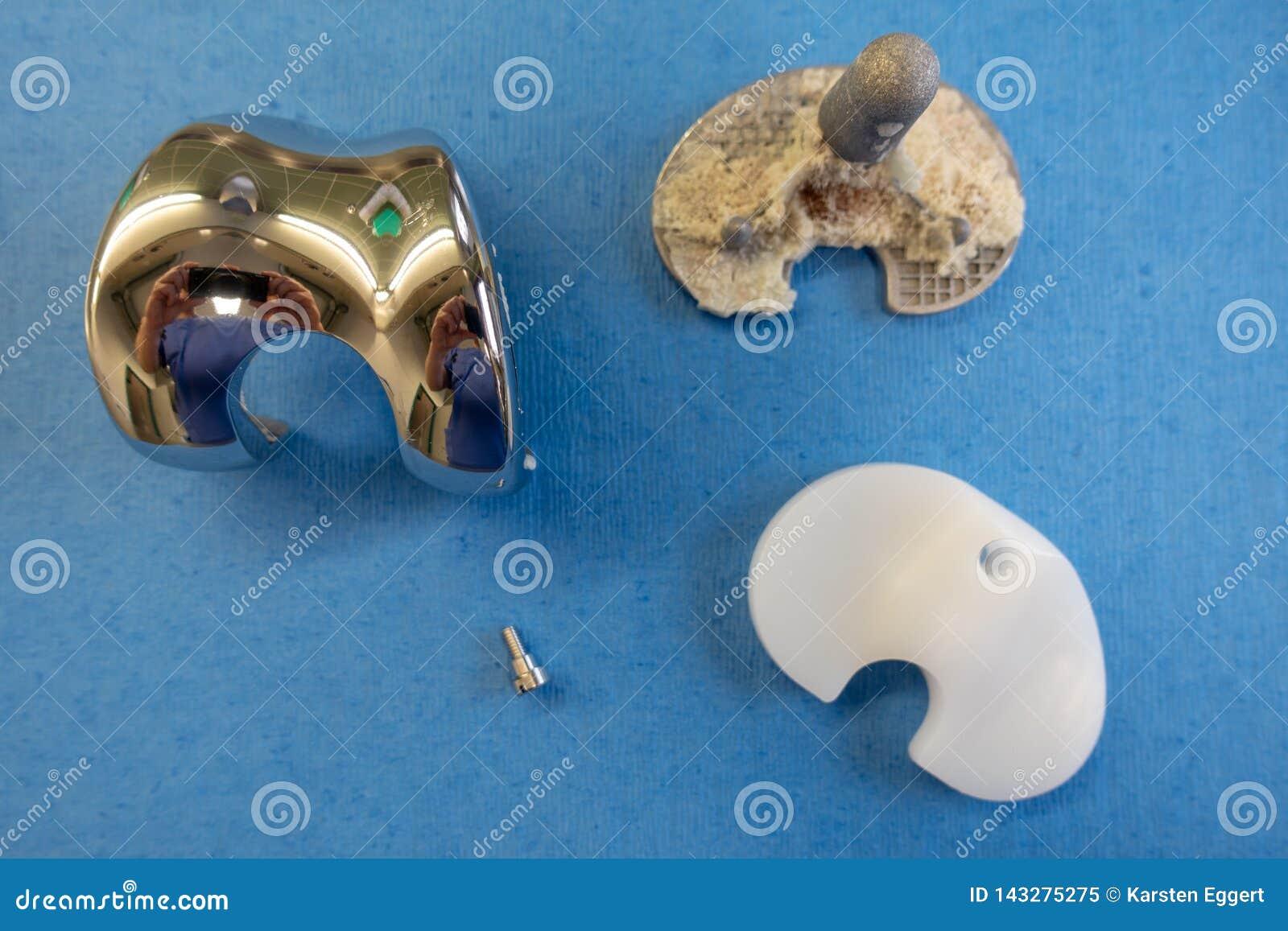 Implantes removidos de uma pr?tese do joelho