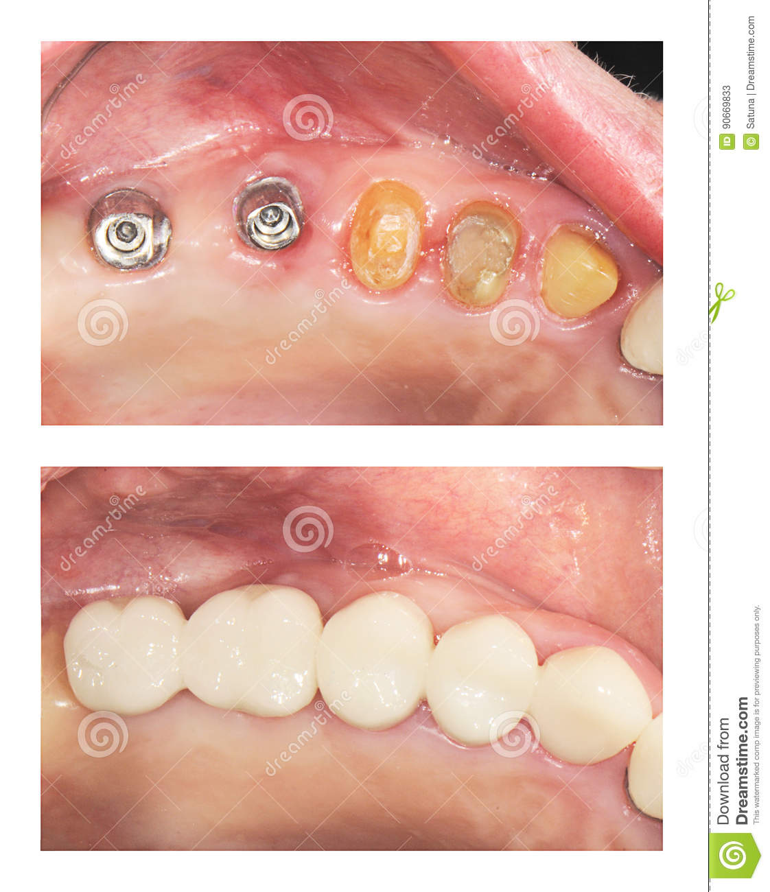 Before and after - implants and crowns