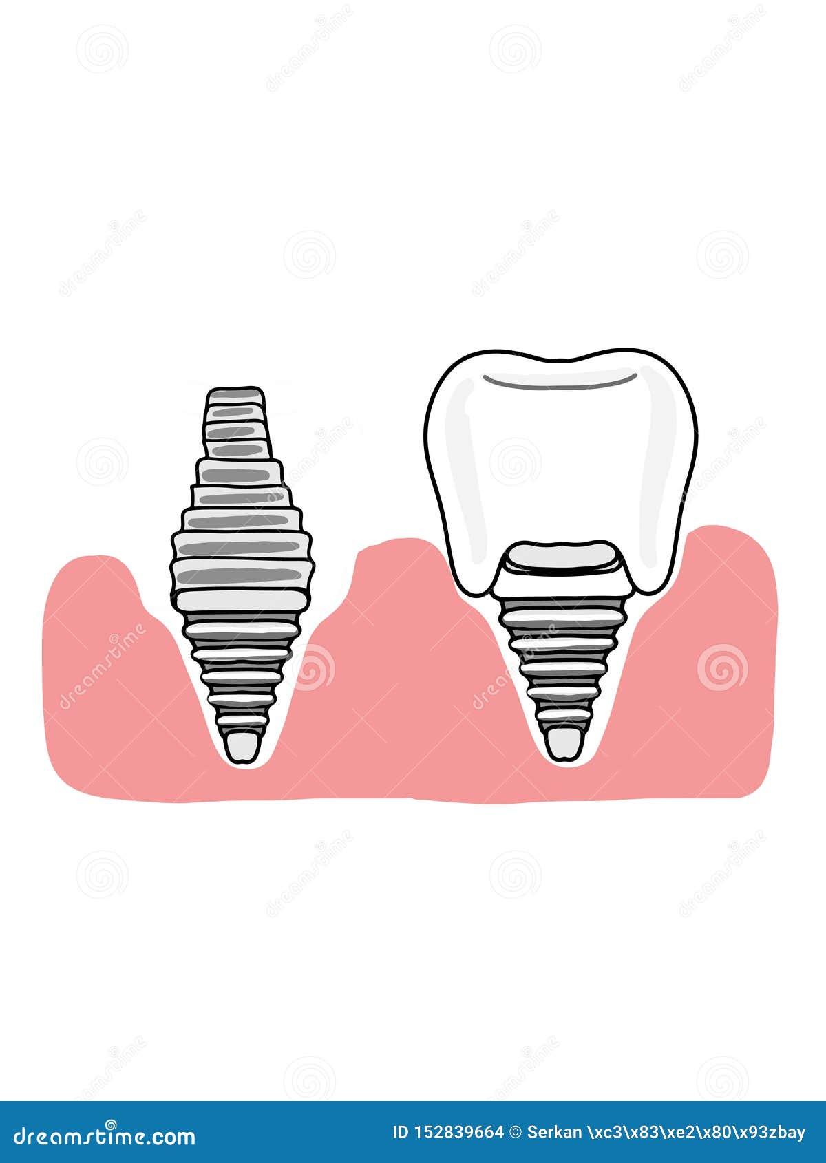 Implants dentaires et couleurs blanches d illustration d icône gingivale de bande dessinée