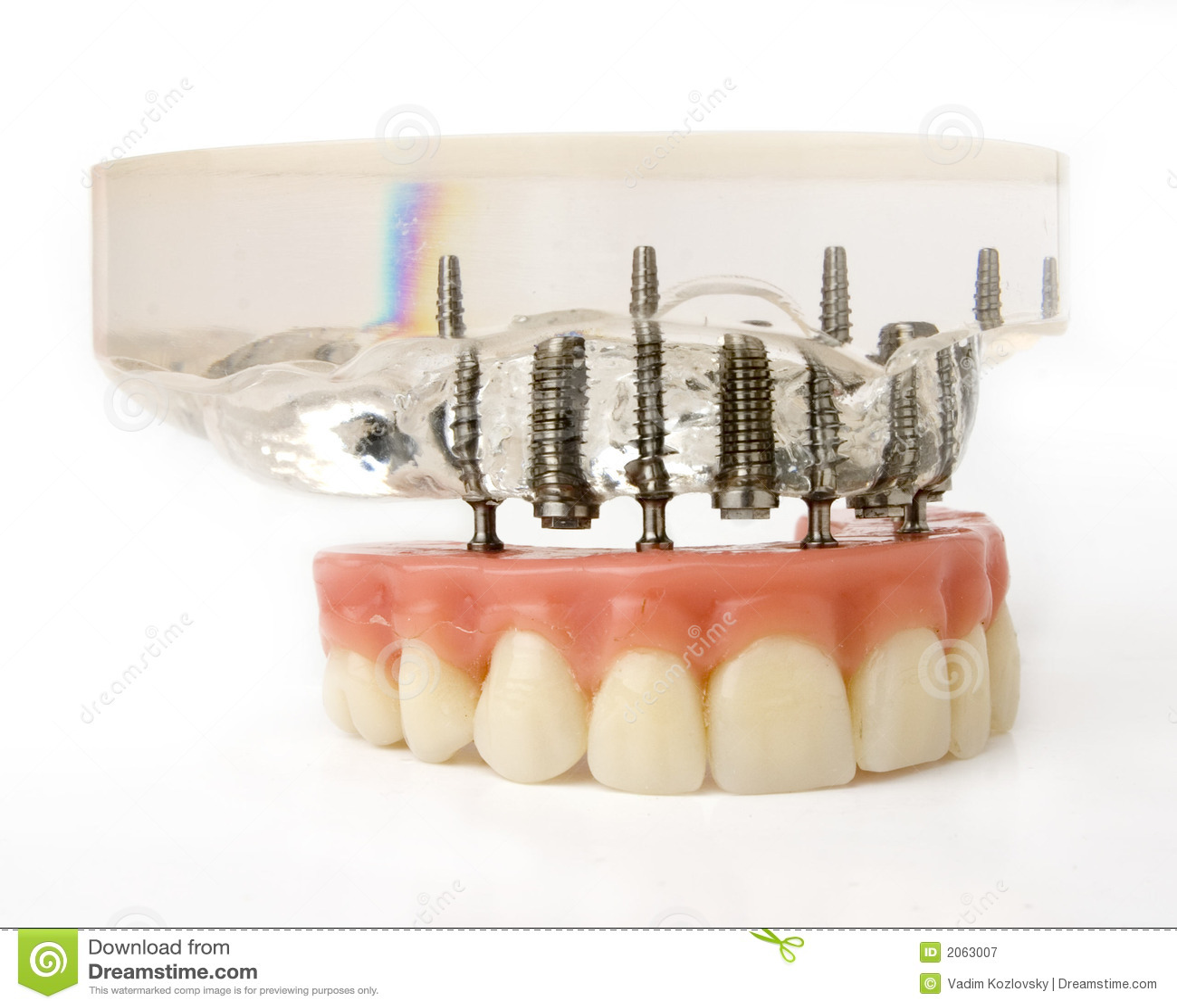Implants model