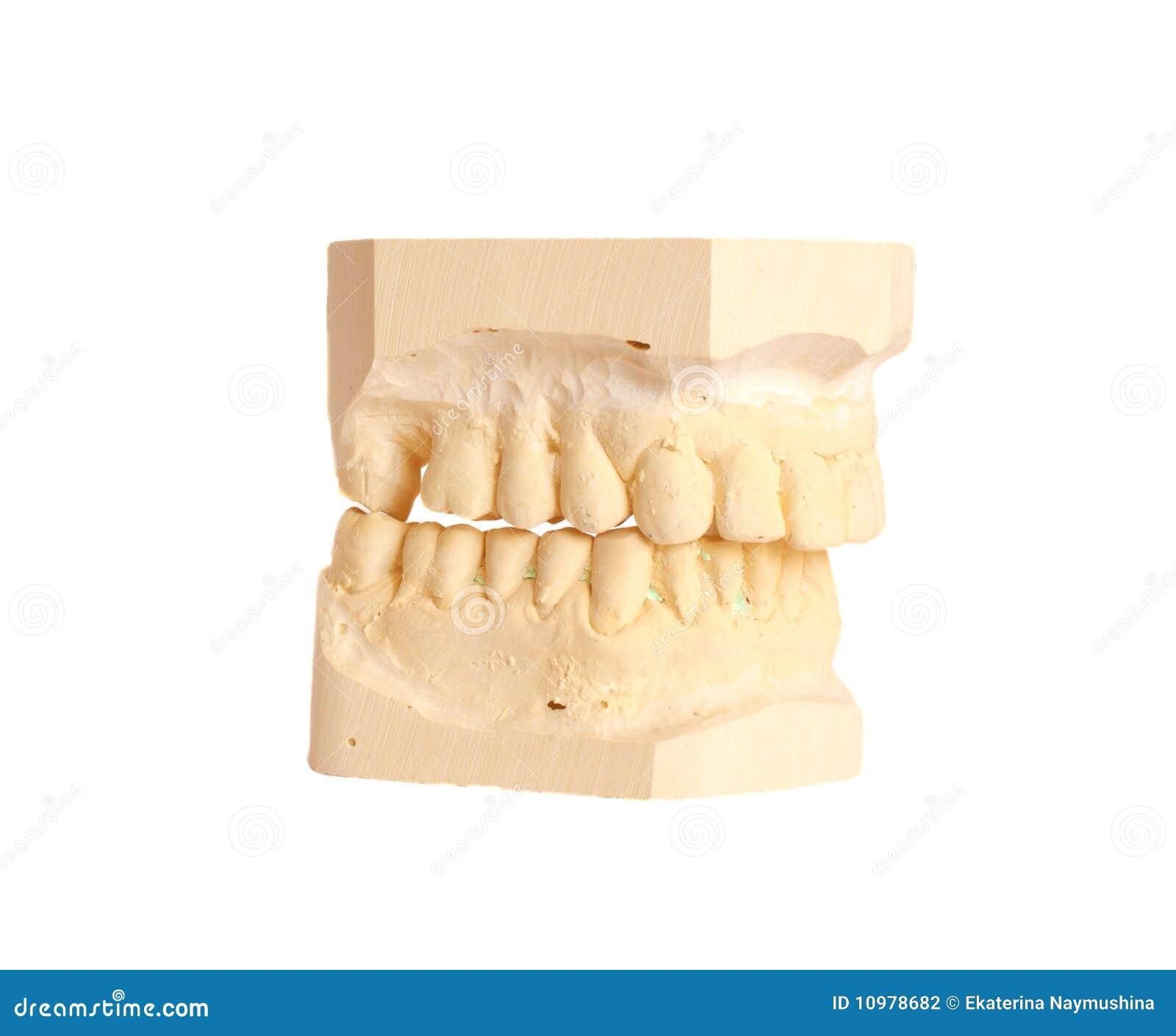 Impressione dentale 4