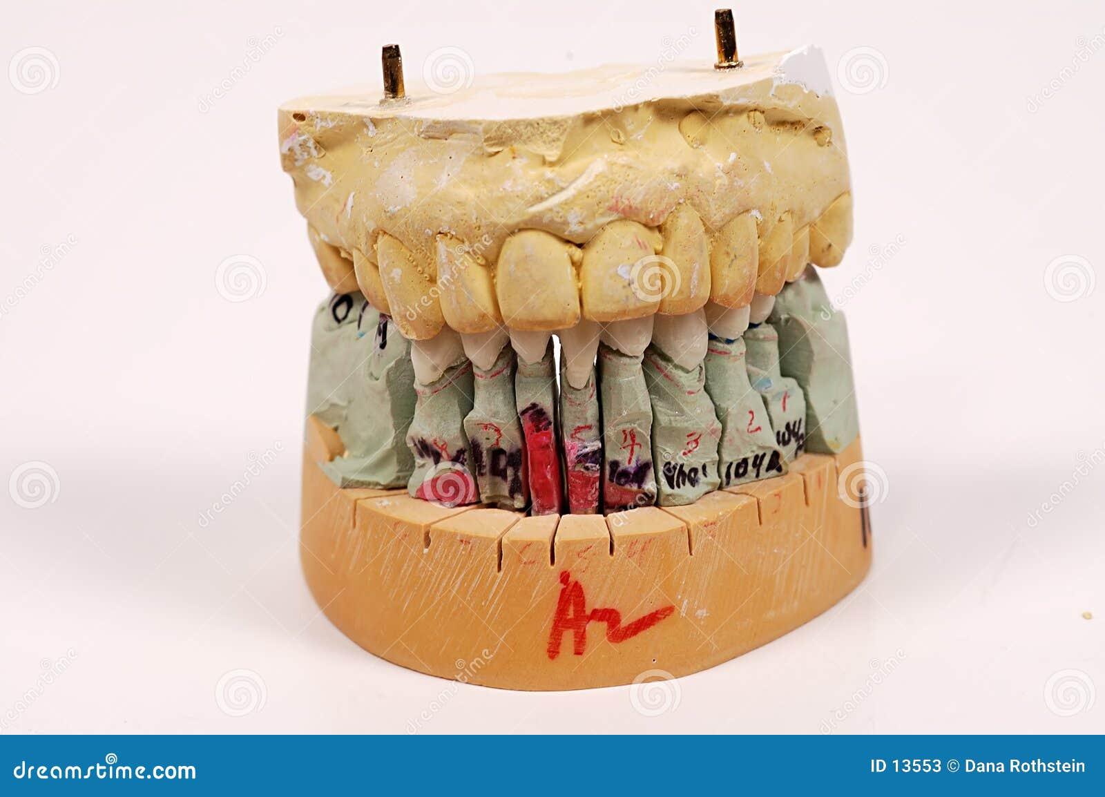 Impressioni dentali