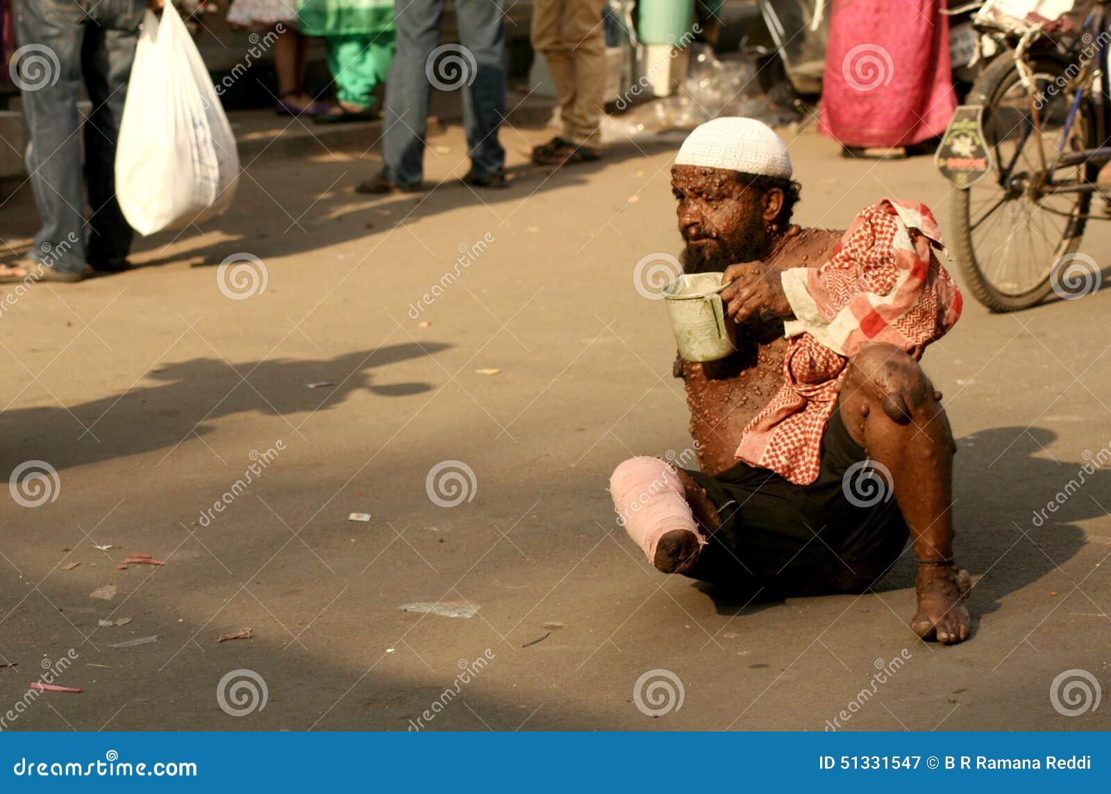 Beggar Children Clipart