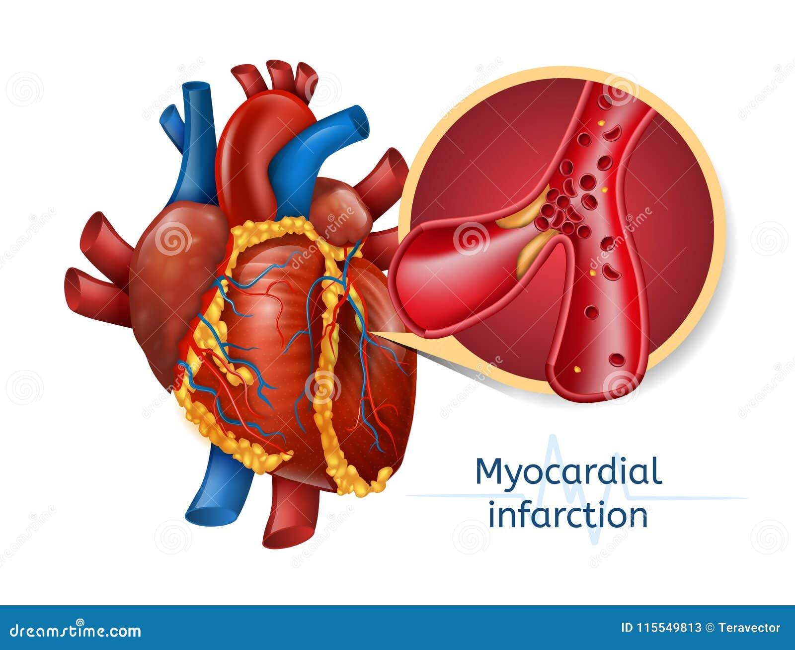 Infarctus Du Myocarde Coeur De 3d Realostic Illustration de Vecteur ...
