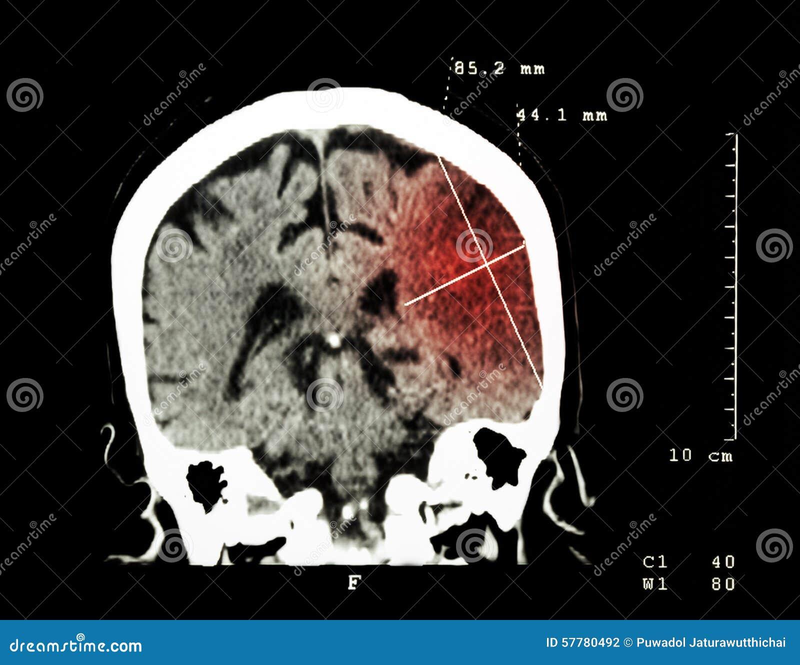 Infarto cerebral en el hemisferio izquierdo (movimiento isquémico) (CT-exploración del cerebro): Fondo de la medicina y de la cie