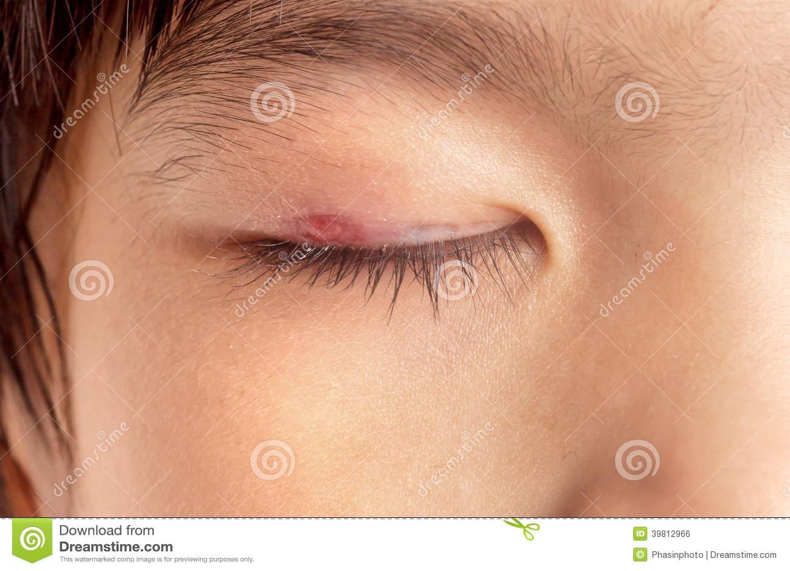 Infecção de olho do chiqueiro