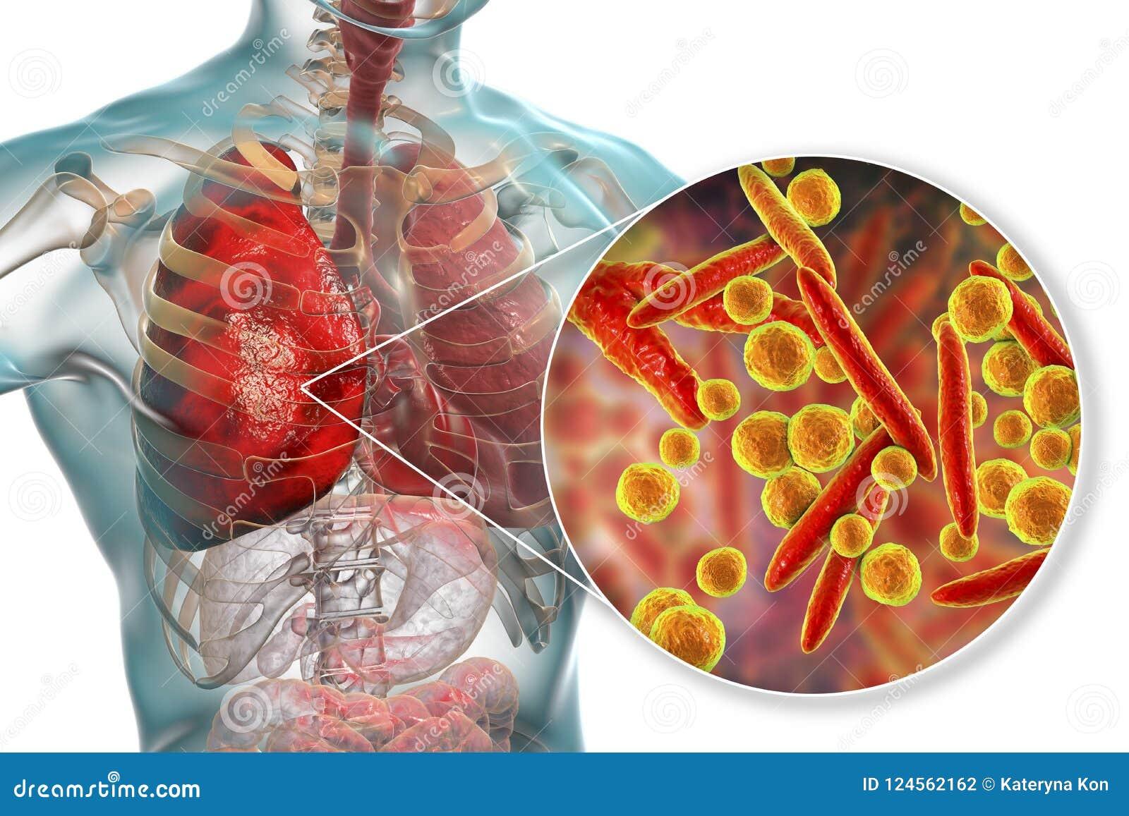 Infecção do pulmão causada por pneumoniae do Mycoplasma das bactérias