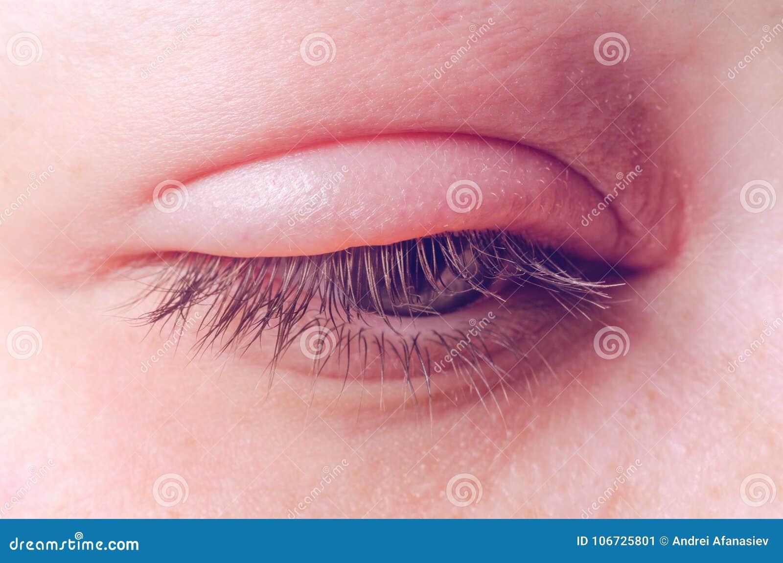 infeccion en in ojo