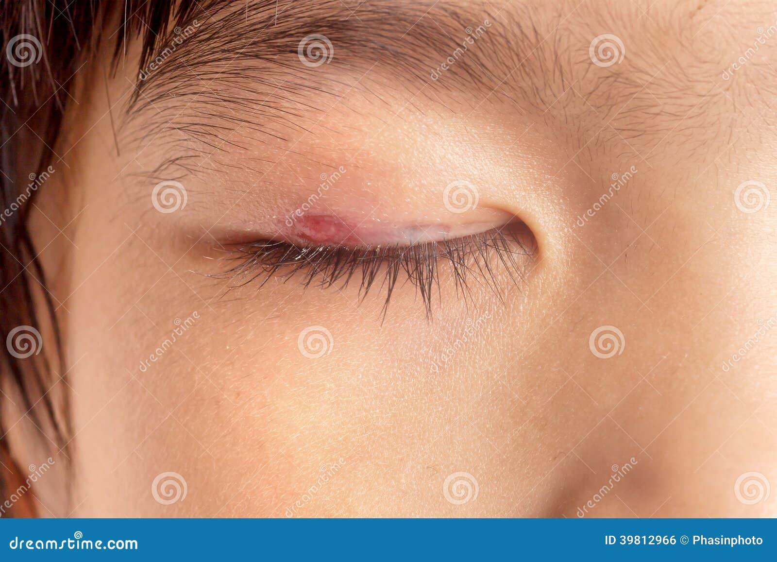 Infección de ojo de la pocilga