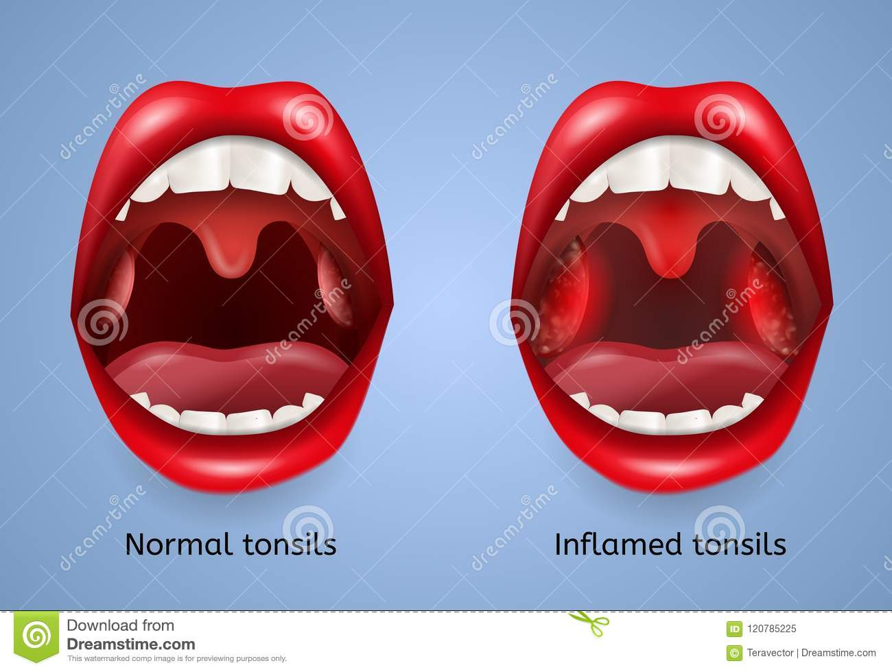 Tonsils Cartoons  Illustrations  U0026 Vector Stock Images