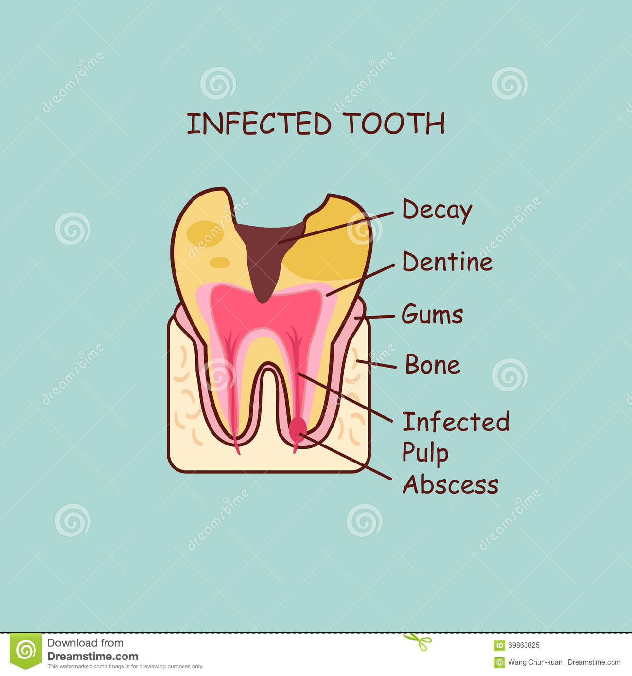 Infected Tooth Concept Stock Vector Illustration Of Dentist 69863825