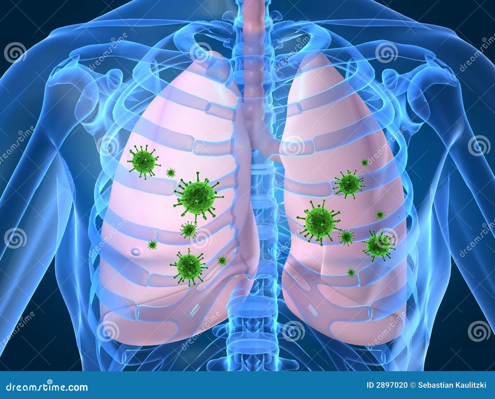 symptome d une infection au poumon