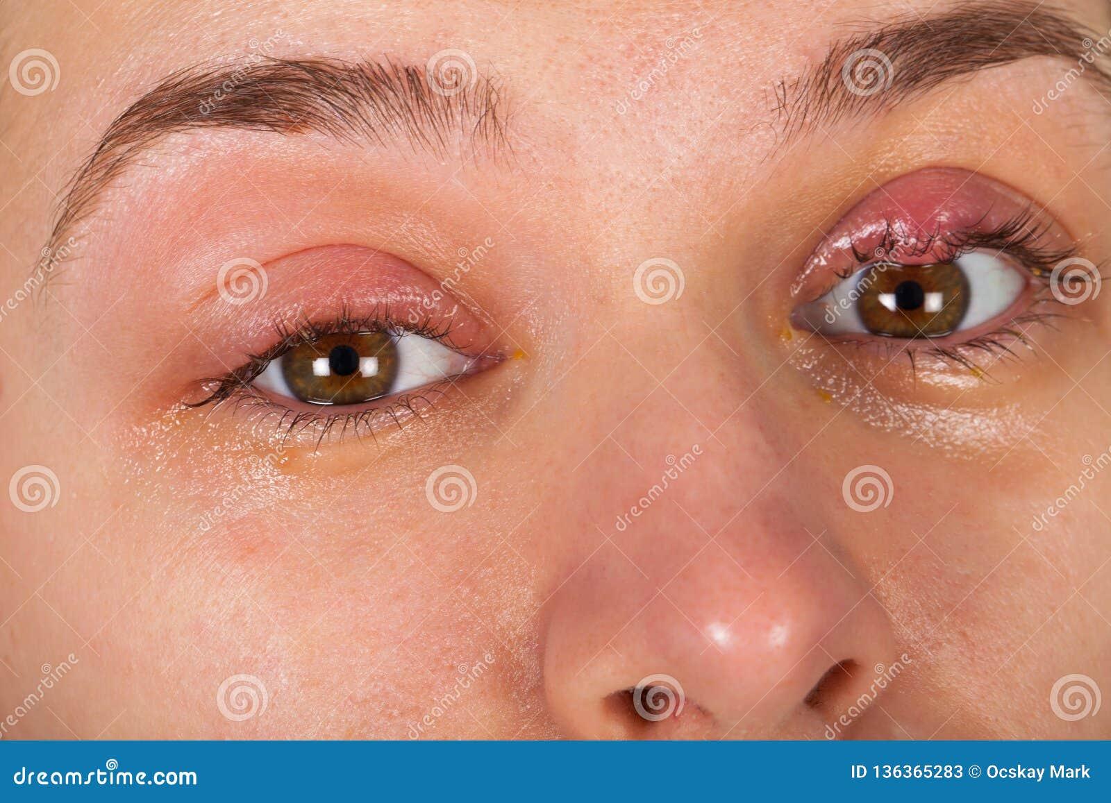 Infection Supérieure De Paupière - Chalazion Image stock - Image du ...