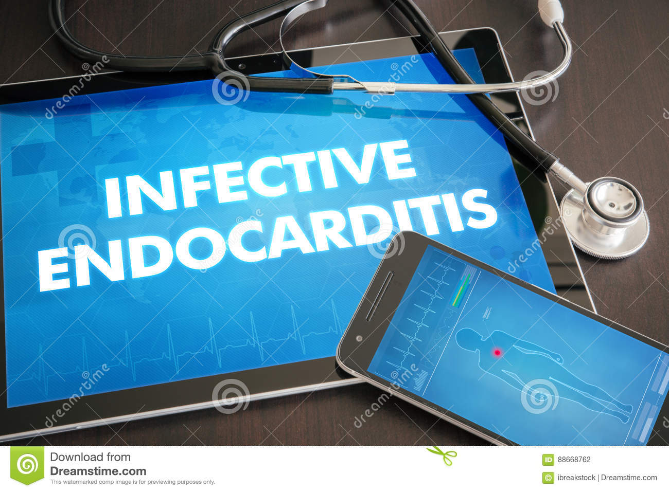 Infective endocarditis (heart disorder) diagnosis medical concept on tablet screen with stethoscope