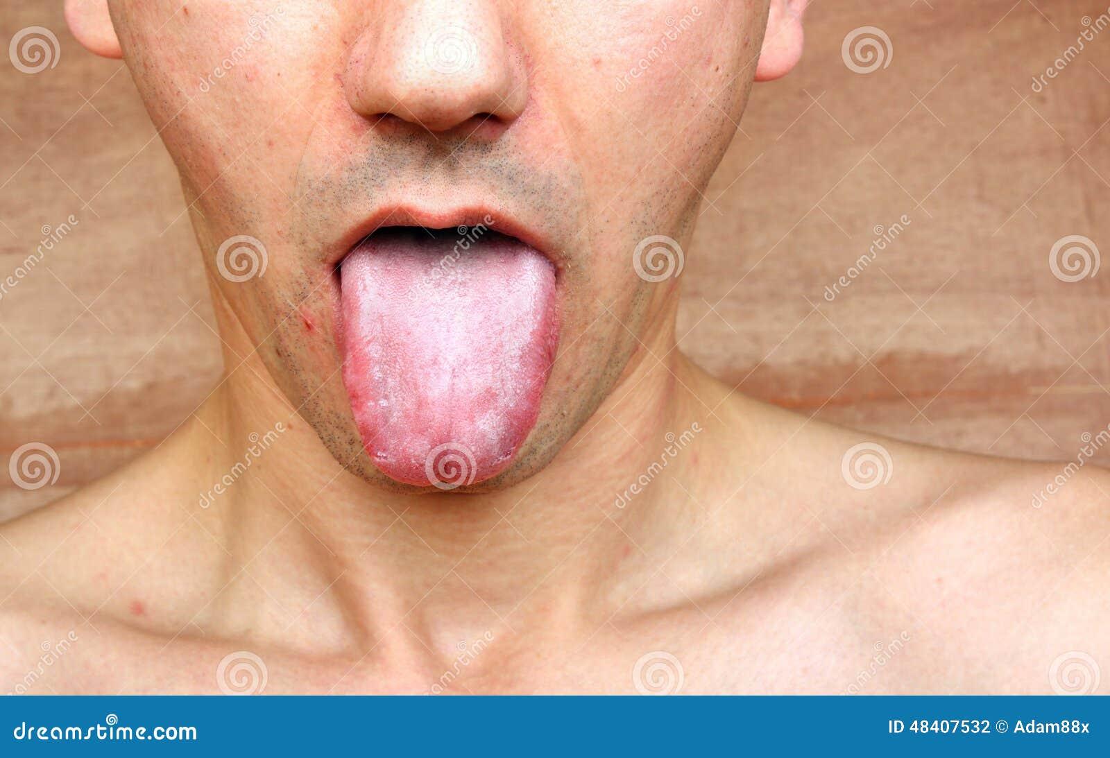 Bosses sur la gorge endolorie