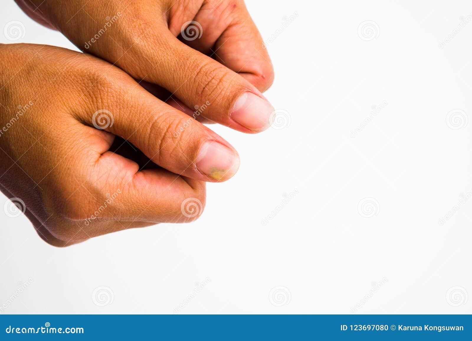 Infezione del fungo dell unghia sul grande dito Micosi su NaI
