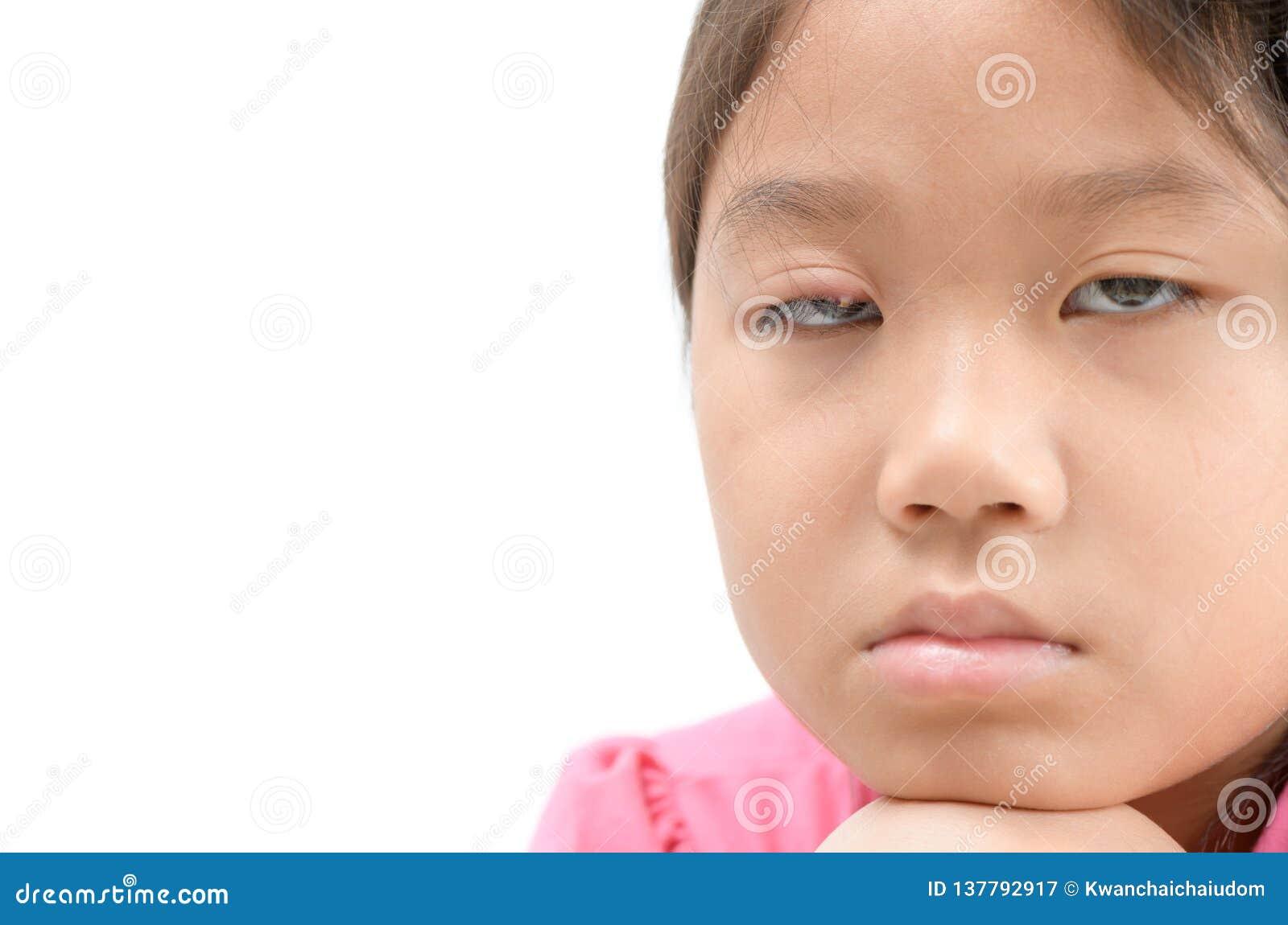 Infezione di occhio triste della ragazza una isolata su fondo bianco