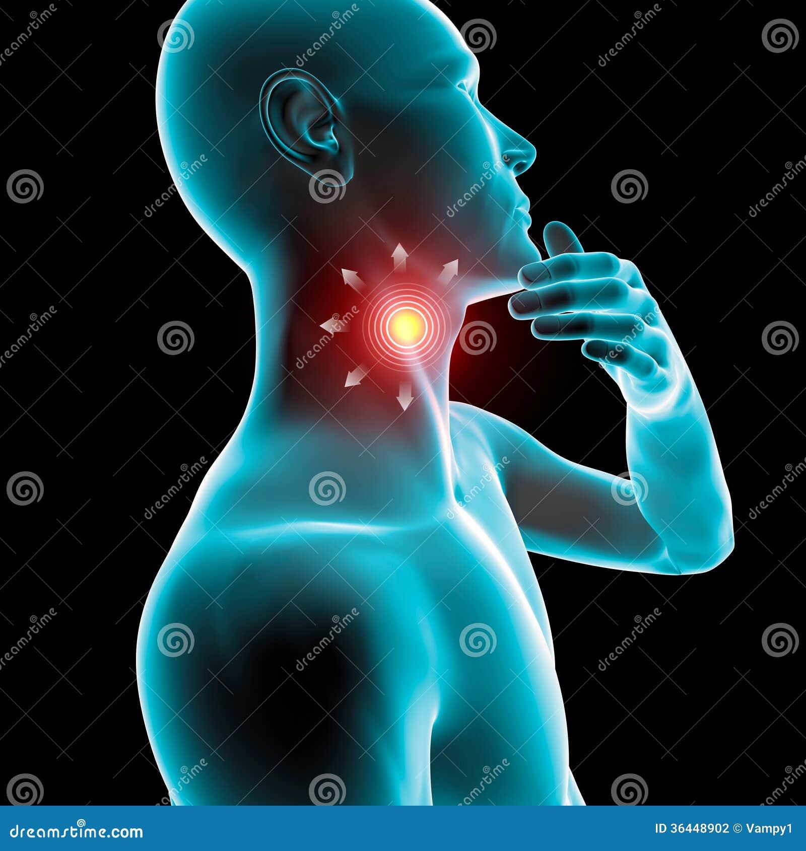 Causas y tratamiento del dolor de garganta o faringitis -