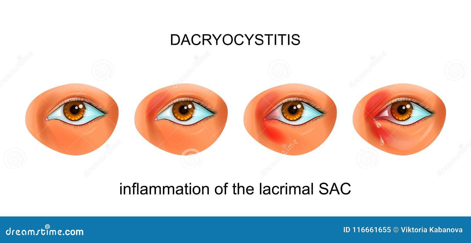 Inflamación Del SACO Lacrimal Del Ojo Dacryocystitis Ilustración del ...