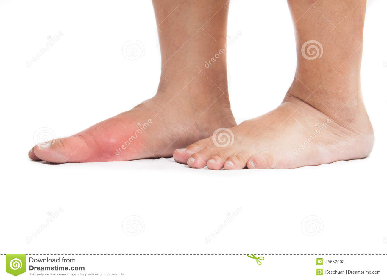 Inflammation du pied droit