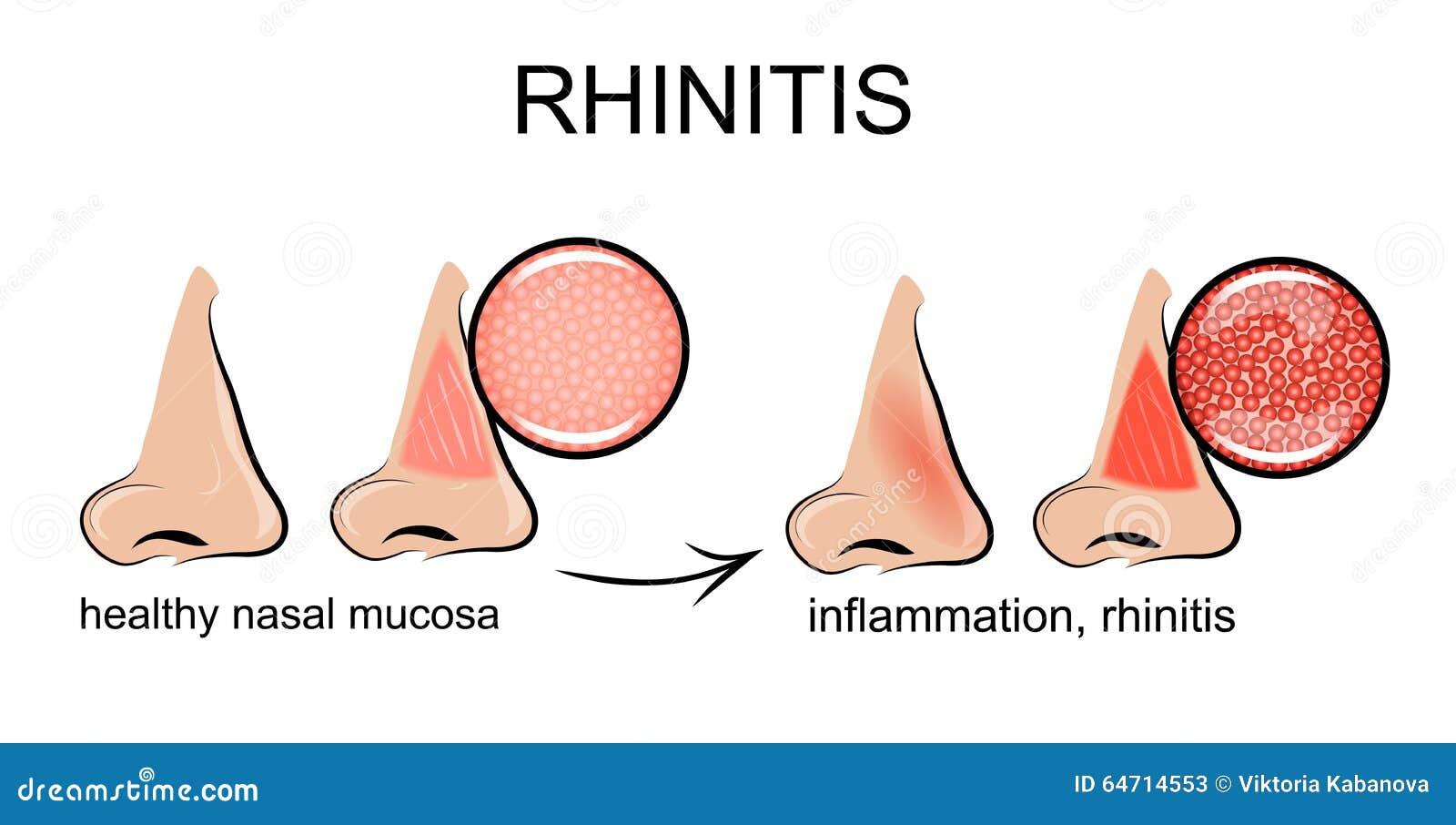 Inflammation du mucosa nasal