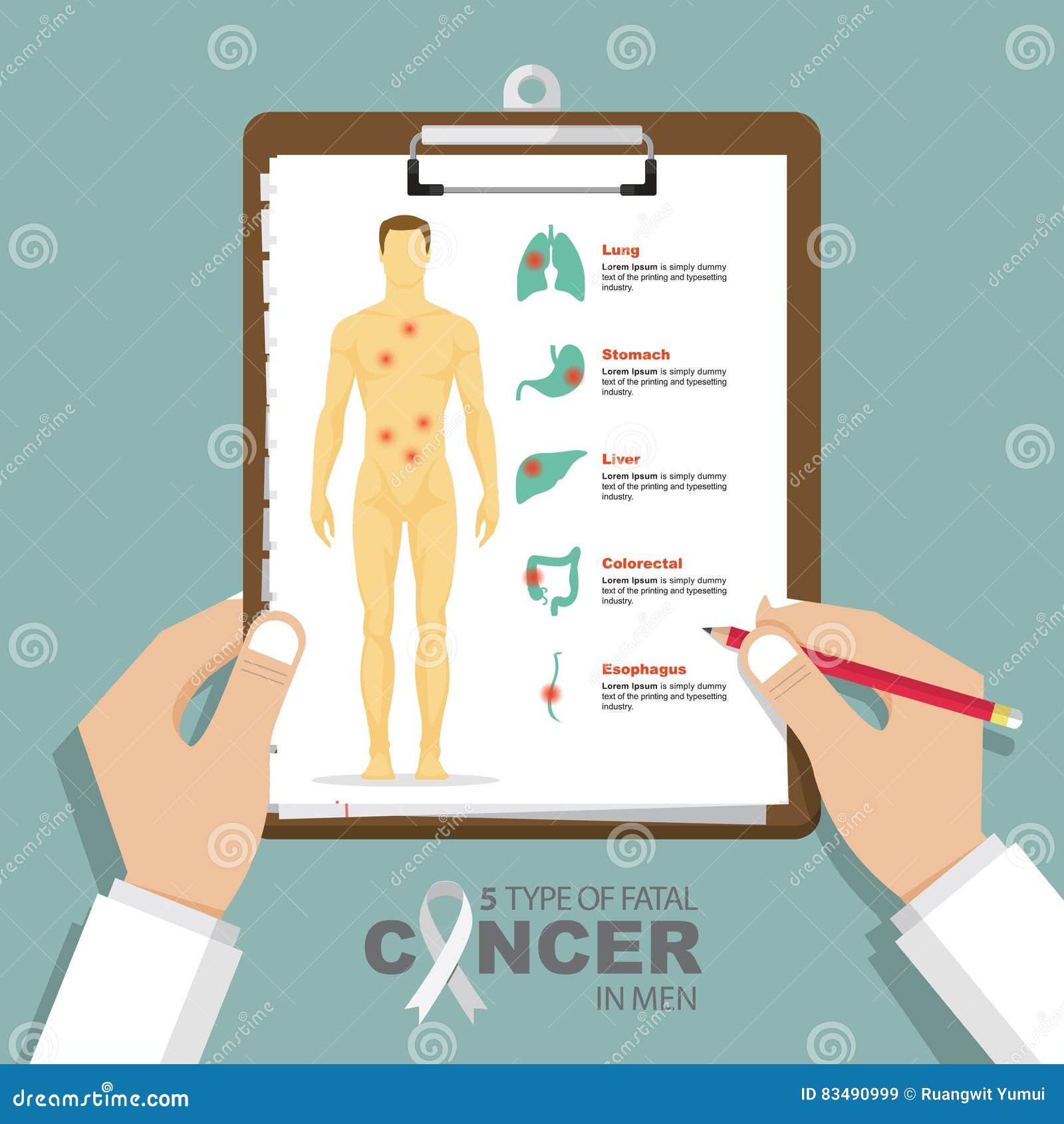Infographic för top 5 typ av dödlig cancer i män i plan design Skrivplatta i doktorshand Läkarundersökning- och hälsovårdrapport