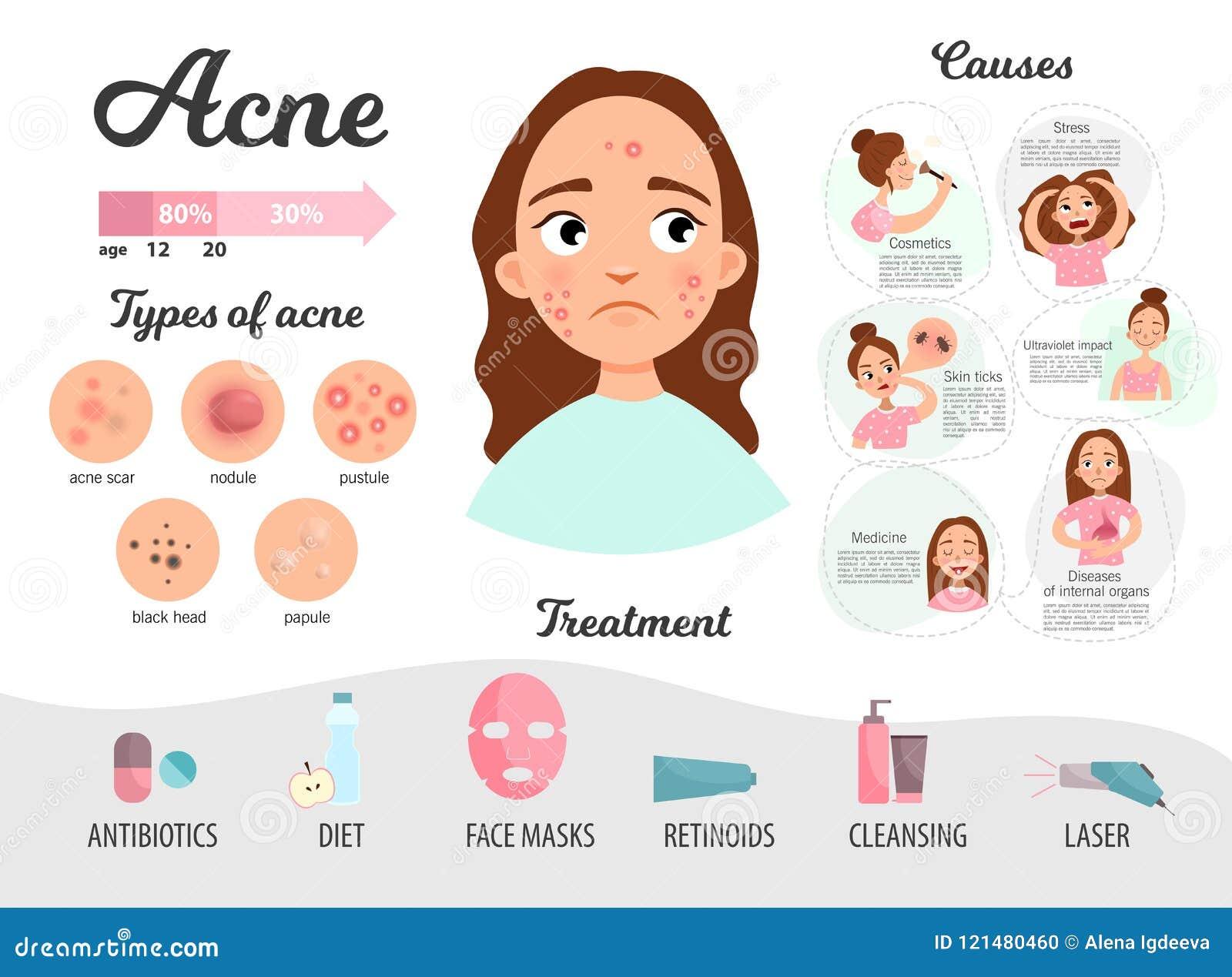 Infographics d acné