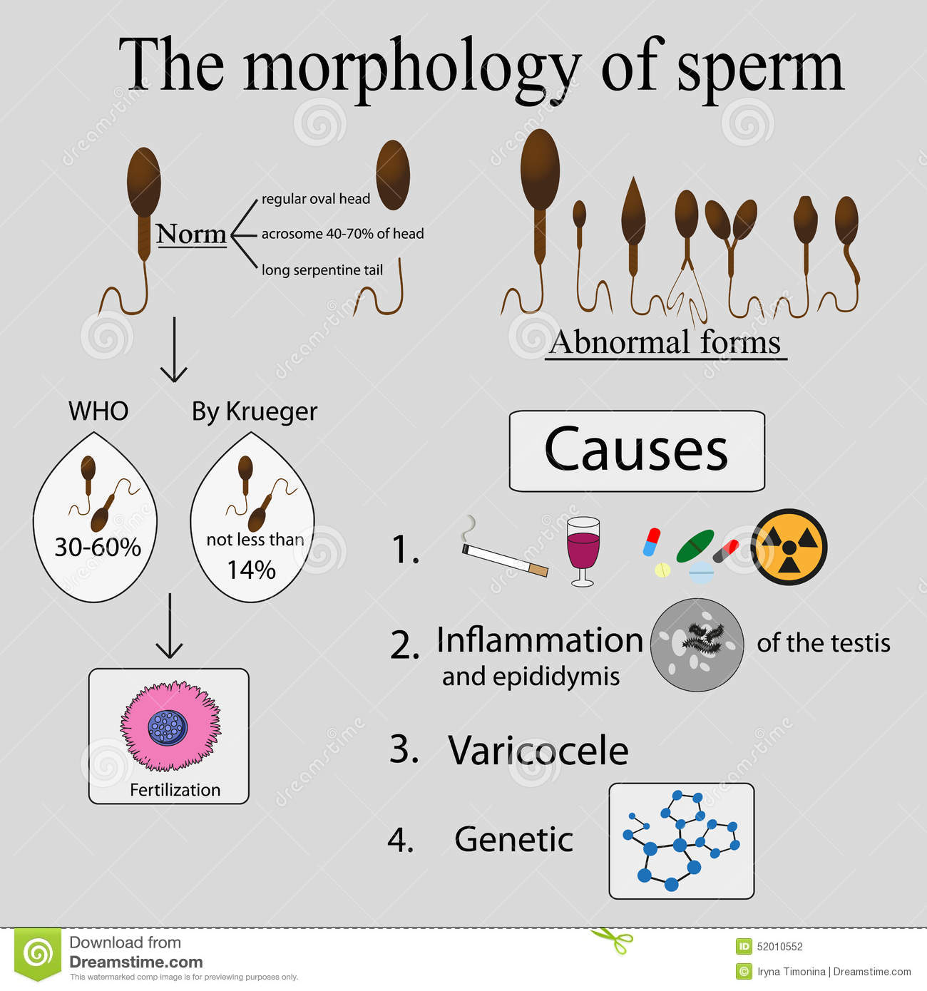 Did farted? Causes of less sperm tits, only