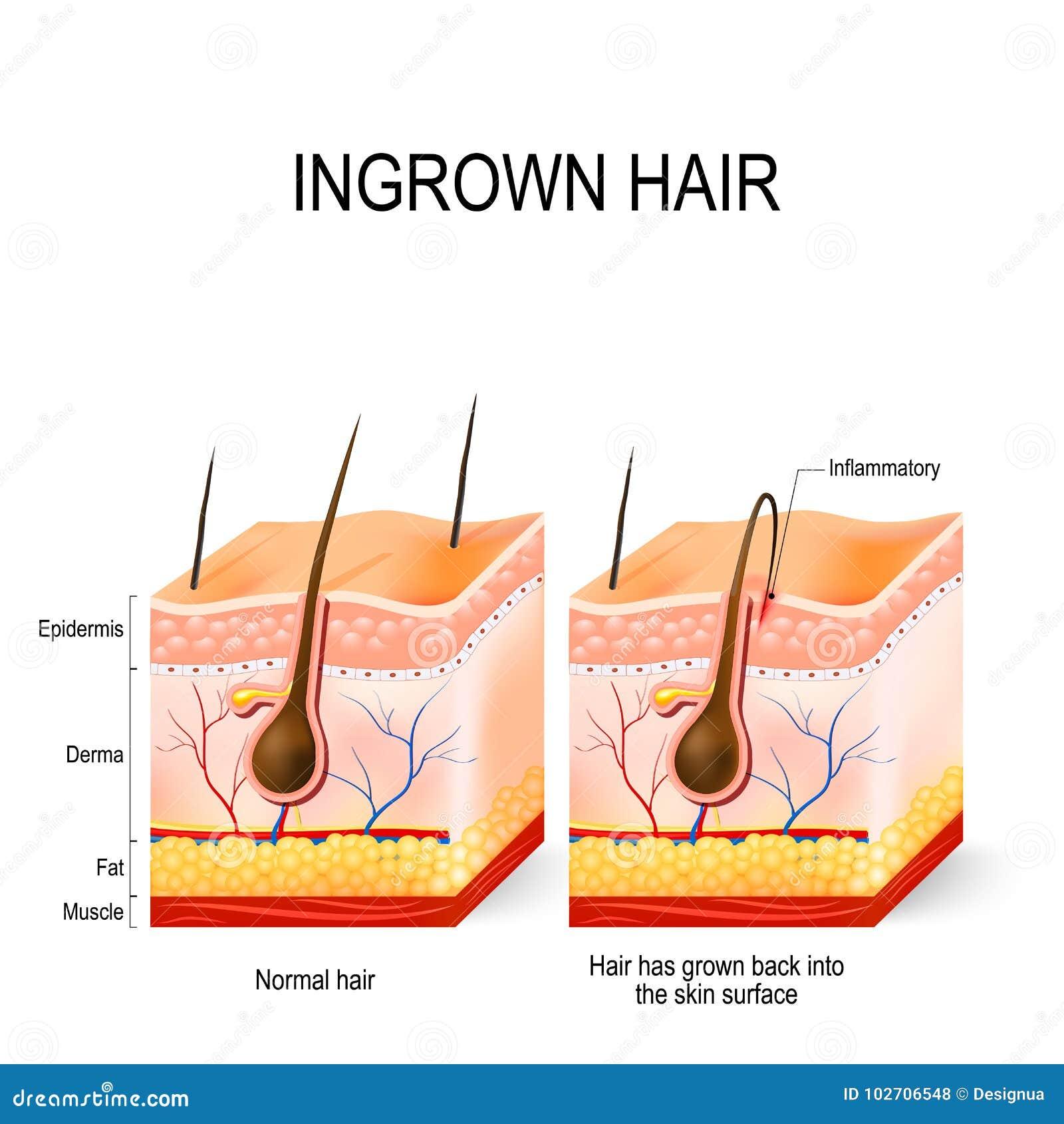 Ingrown Haar vektor abbildung. Illustration von menschlich - 102706548