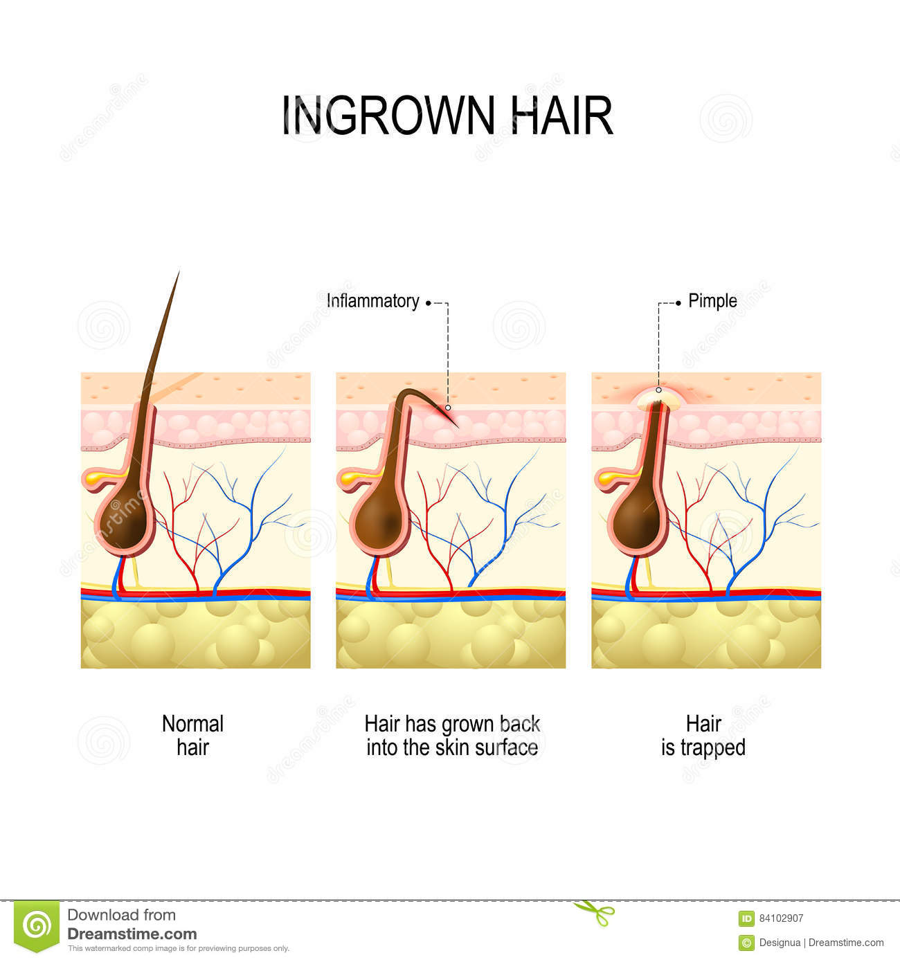 ingrown hair after hair removal and shaving stock vectoringrown hair after hair removal and shaving