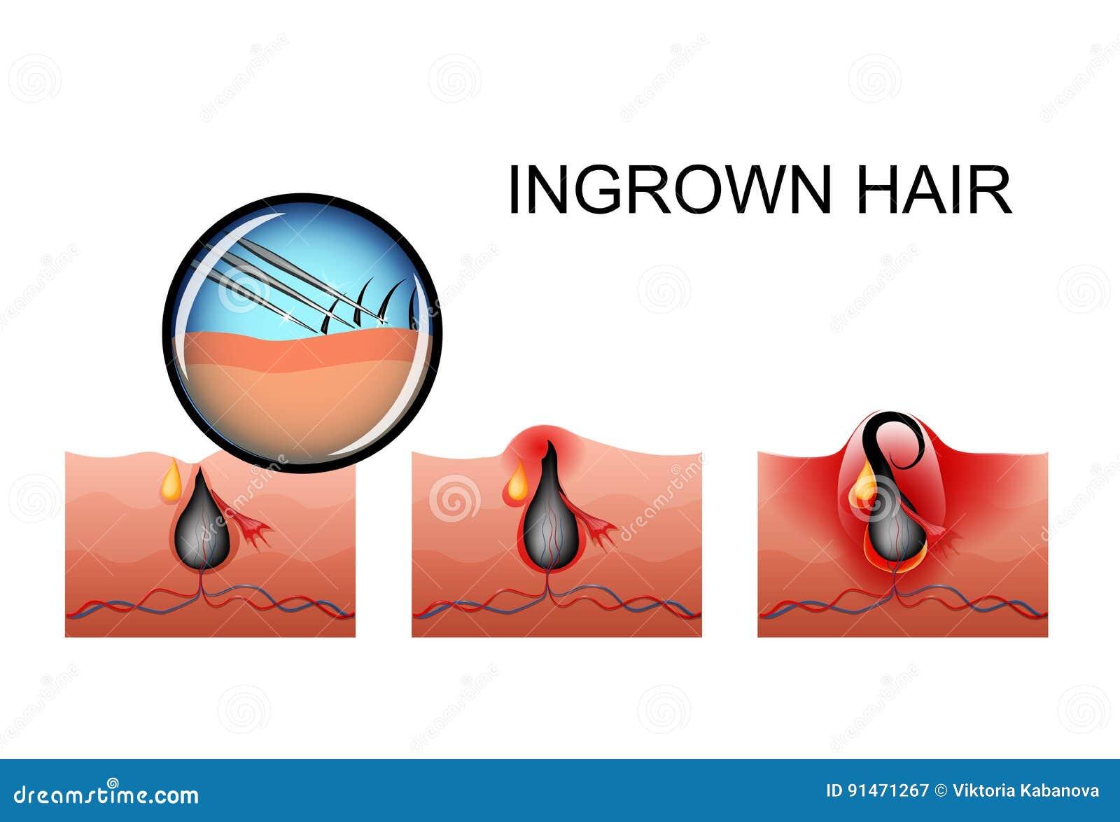 Ingrown Hair, Pimple Ripening Stock Vector - Illustration of ...
