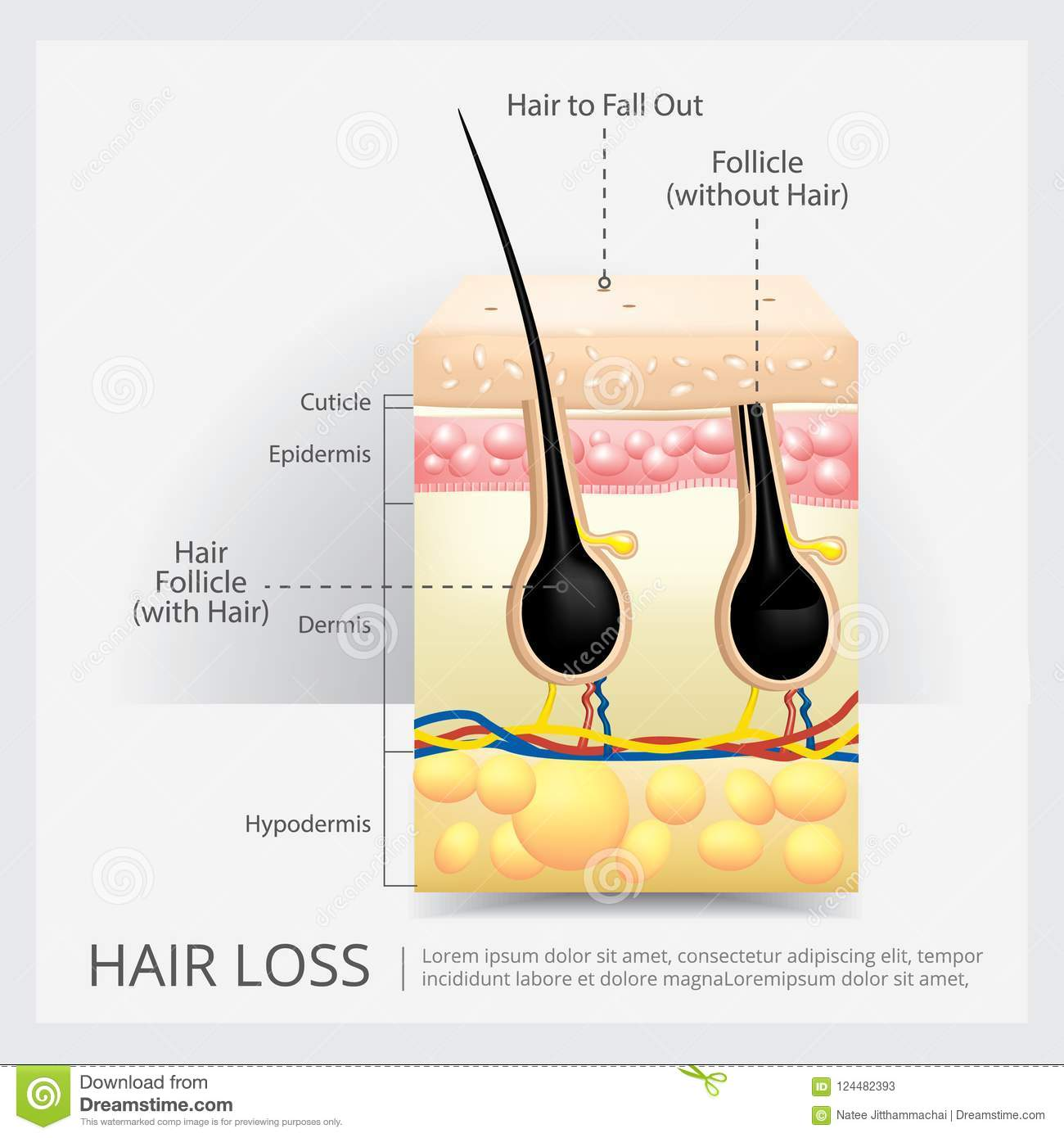 Diagram Of An Ingrown Hair Trusted Wiring Diagram