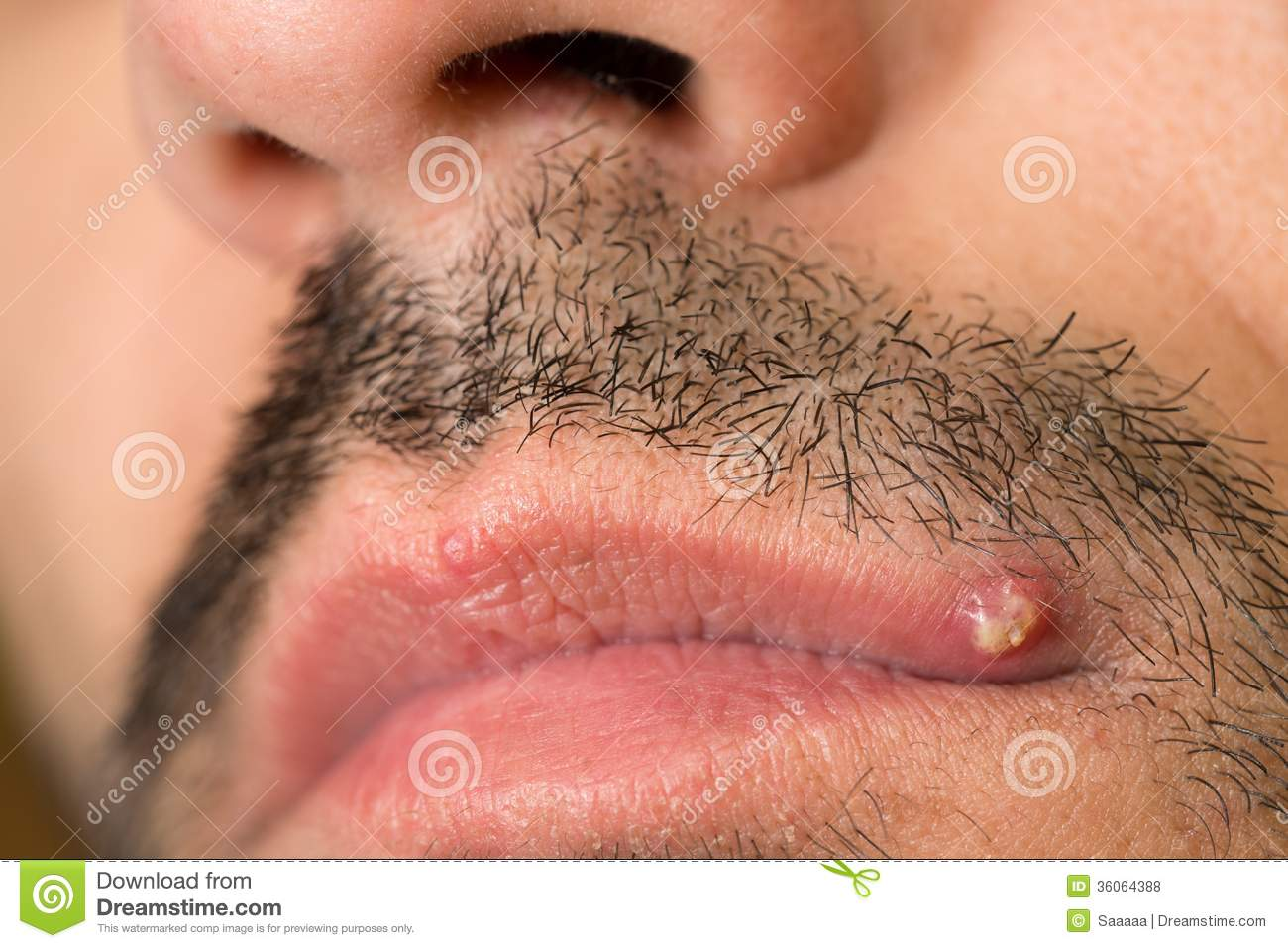 Ingrown Hair On Lip