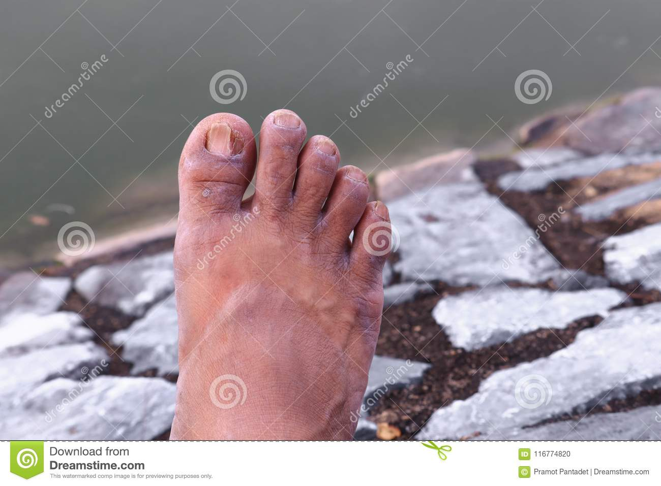 Ingrown Nail Big Toe Broken Toenail Stock Photo - Image of nail ...