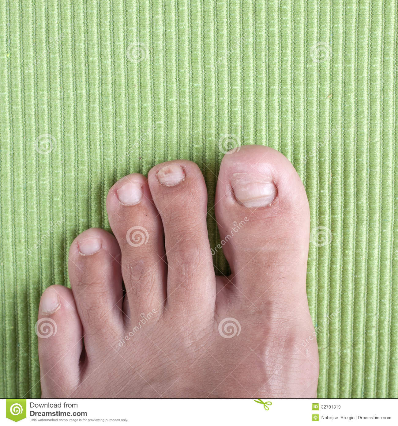 Ingrown toe nail stock image. Image of science, wound - 32701319