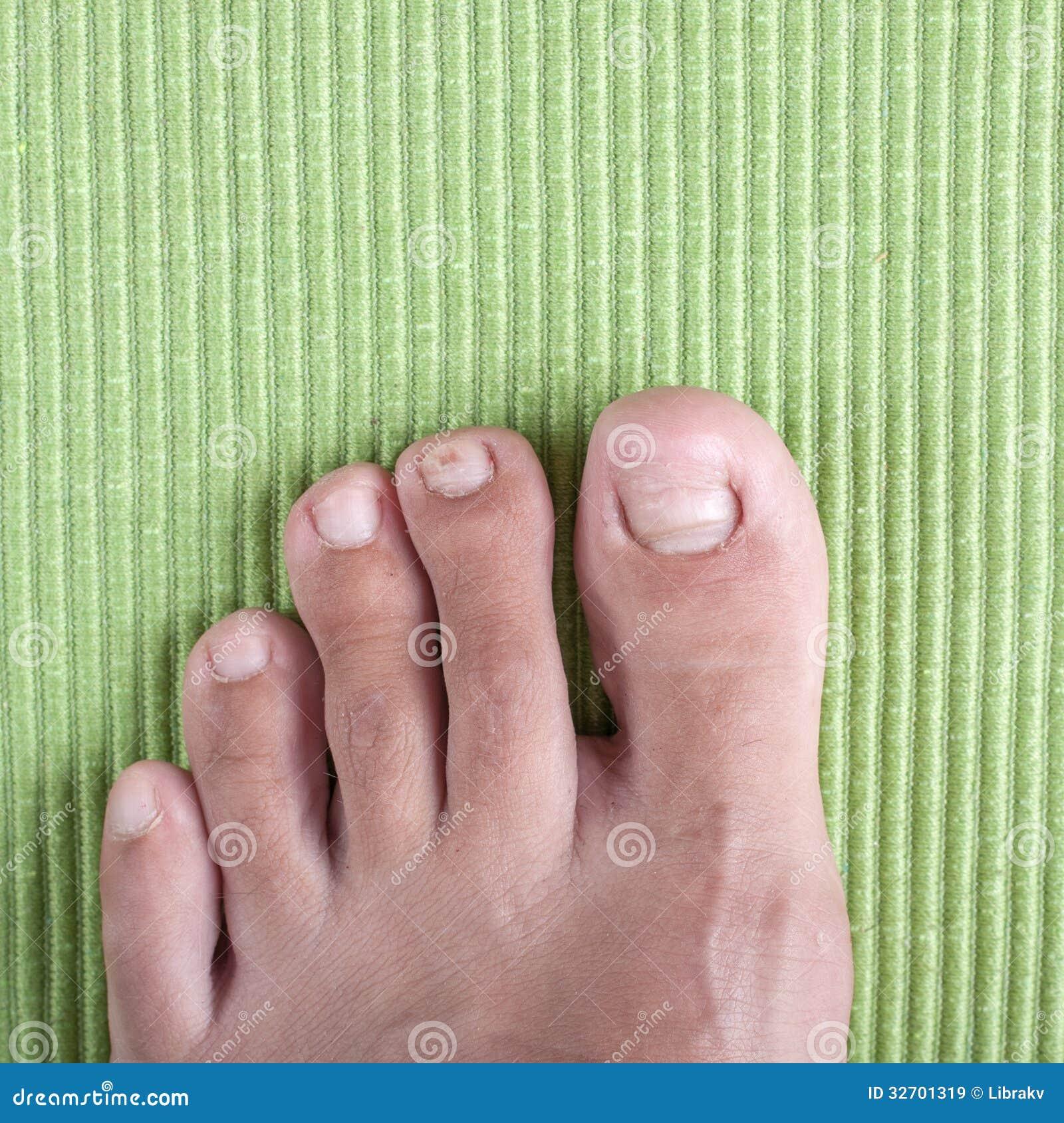 Badly Infected Ingrown Toenail Ingrown Toe Nail Royal...