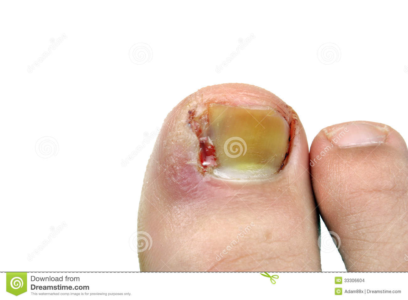 Ingrown Toenail After Surgery Stock Photo - Image of blood, ingrown ...