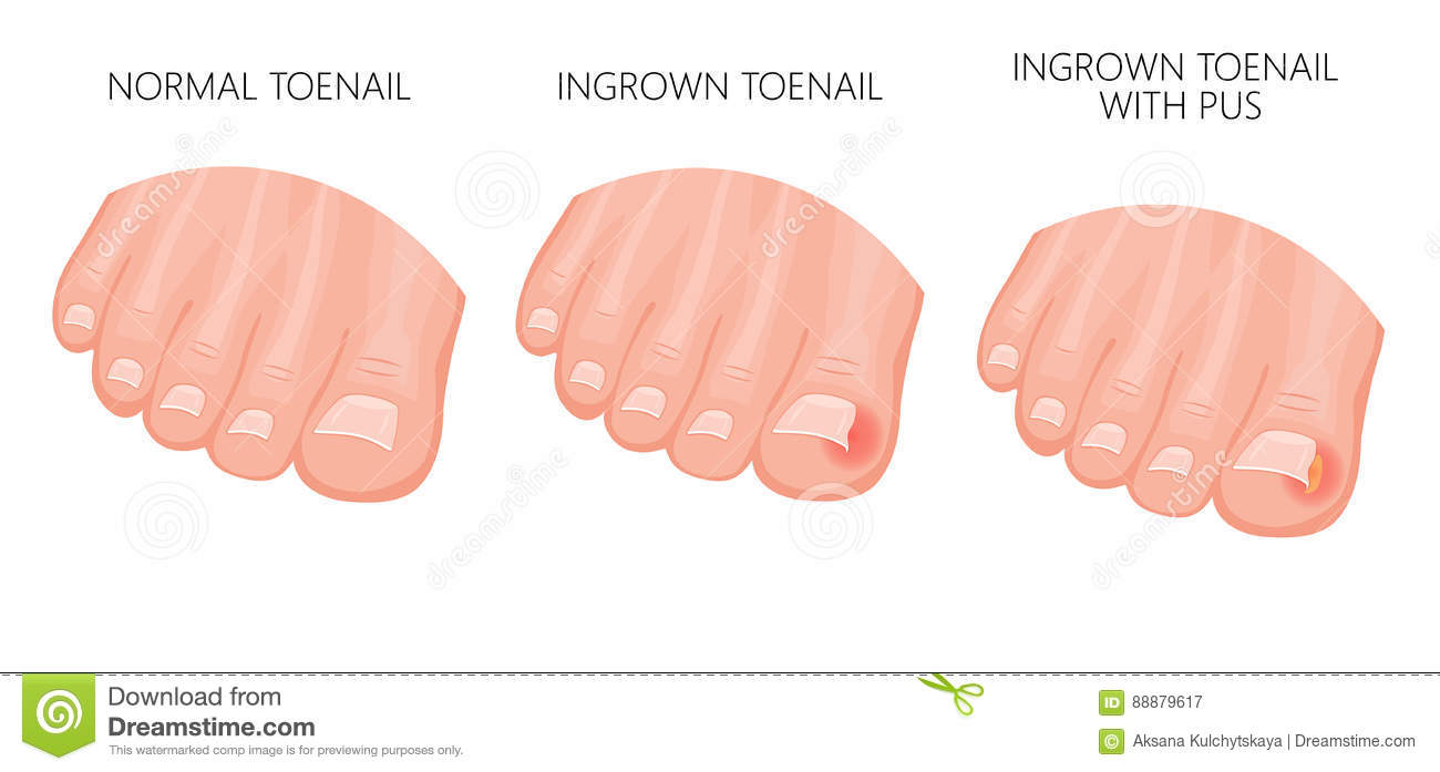 Ingrown Toenail stock vector. Illustration of fungal - 88879617