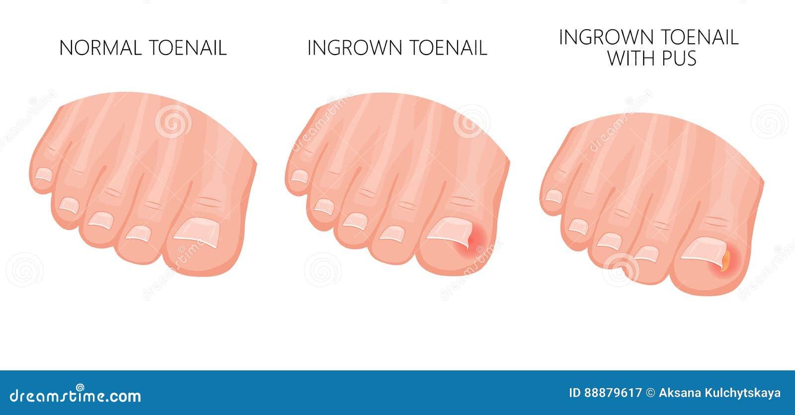 Ingrown Toenail stock vector. Illustration of fungal - 88879617