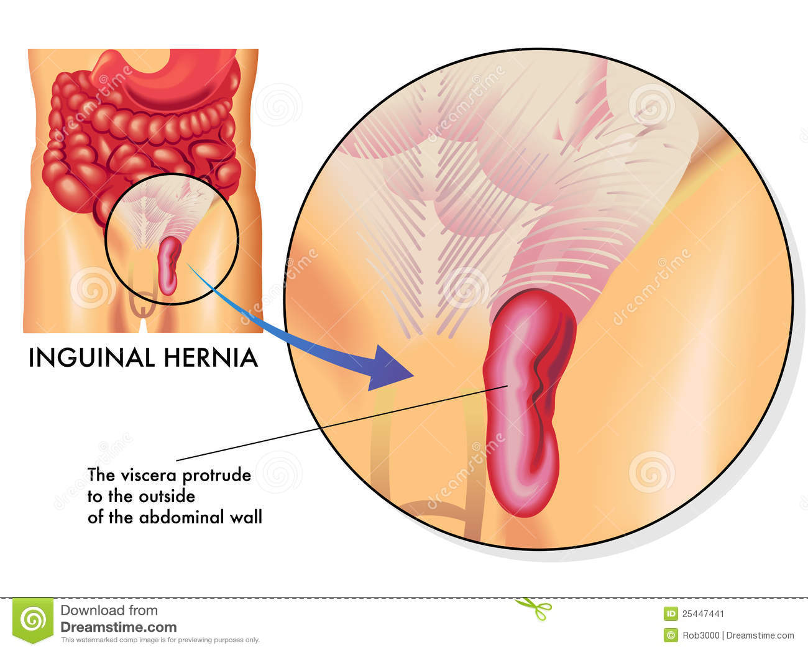 Human Hernia Diagram - Auto Electrical Wiring Diagram •